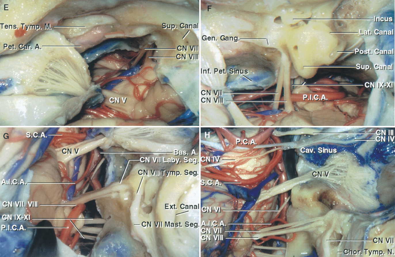 FIGURE 8.12. E–H. Anterior petrosectomy and extended middle fossa approach. E, additional bone has been removed around the internal acoustic meatus and the dura opened to expose the facial and vestibulocochlear nerves. F, the exposure has been extended lateral to the internal acoustic meatus. The tegmen has been opened to expose the head of the incus in the epitympanic area. The osseous capsule of the labyrinth has been opened to expose the semicircular canals. The presigmoid dura behind the labyrinth has been exposed and opened. G, a translabyrinthine approach directed through the middle fossa has been completed by removing the semicircular canals and vestibule. The dura has been opened to give an exposure through the middle fossa similar to that seen with the presigmoid approach. The labyrinthine, tympanic, and mastoid segments of the facial nerve have been exposed. H, this extended middle fossa exposure extends from the lateral wall of the cavernous sinus, across the trigeminal nerve to the area lateral to the internal acoustic meatus, and provides wide access to the anterior part of the posterior fossa.