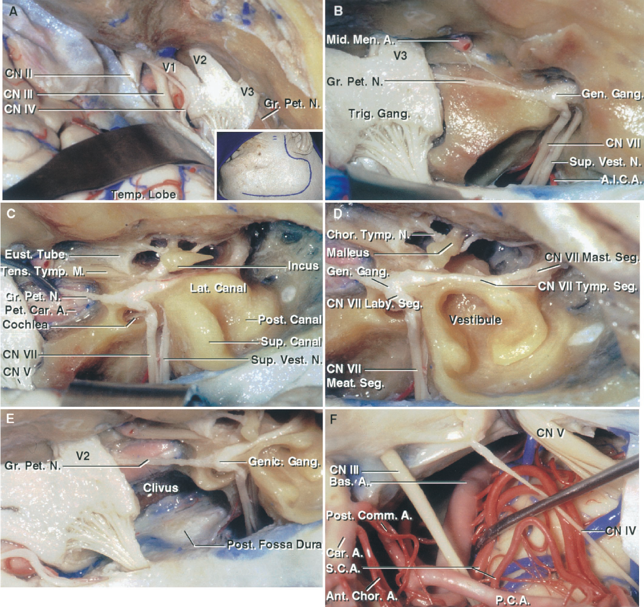 FIGURE 8.13. A–F. Subtemporal exposure of the right middle, infratemporal, and posterior fossae. A, the insert shows the side of the scalp incision. A frontotemporal craniotomy has been completed and the dura has been elevated from the middle fossa floor and lateral wall of the cavernous sinus. B, enlarged view. The bony roof over the geniculate ganglion and internal meatus has been removed and the dura lining the meatus opened to expose the facial and superior vestibular nerves. C, additional middle fossa floor has been removed to expose the petrous carotid, the cochlea in the angle between the greater petrosal nerve and pregeniculate part of the facial nerve, the semicircular canals and tympanic cavity. The tensor tympani muscle and eustachian tube are exposed in front of the petrous carotid artery. D, the bone between the superior and posterior canals has been removed to expose the vestibule with which both ends of the semicircular canals communicate. The vestibule contains the utricle and saccule and communicates below the fundus of the meatus with the cochlea. The meatal segment of the facial nerve courses in the internal acoustic meatus, the labyrinthine segment between the semicircular canals and the cochlea, the tympanic segment between the anterior margin of the lateral canal and the oval window on the medial side of the tympanic cavity, and the mastoid segment descends to exit the stylomastoid foramen. E, the petrous apex, medial to the cochlea and extending under the trigeminal nerve, has been removed to expose the lateral edge of the clivus and the posterior fossa dura. F, the medial tentorial edge has been divided behind the petrous ridge to expose the oculomotor, trochlear, and trigeminal nerves and the basilar artery. A., artery; A.I.C.A., anteroinferior cerebellar artery; Alv., alveolar; Ant., anterior; Bas., basilar; Car., carotid; Chor., chorda, choroidal; CN, cranial nerve; Comm., communicating; Eust., eustachian; Gang., ganglion; Gen., geniculate