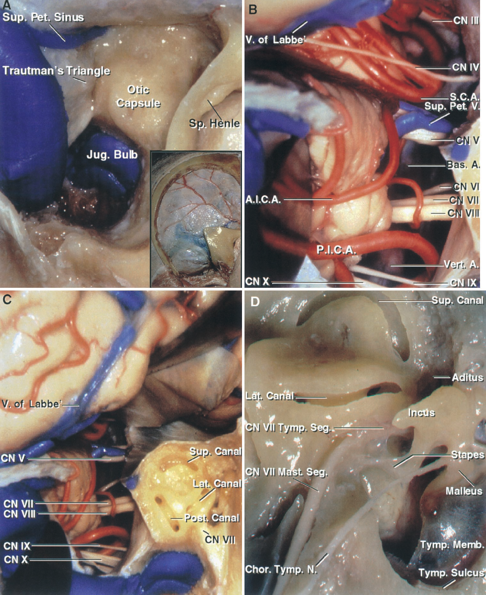 FIGURE 8.14. A–D. Presigmoid approach. A, the insert shows the temporo-occipital craniotomy and the mastoid exposure. The mastoidectomy has been completed and the dense cortical bone around the labyrinth has been exposed. The tympanic segment of the facial nerve and the lateral canal are situated deep to the spine of Henley.Trautman's triangle, the patch of dura in front of the sigmoid sinus, faces the cerebellopontine angle. B, the presigmoid dura has been opened and the superior petrosalsinus and tentorium divided, taking care to preserve the vein of Labbe that joins the transverse sinus, and the trochlear nerve that enters the anterior edge of thetentorium. The abducens and facial nerves are exposed medial to the vestibulocochlear nerve. The posteroinferior cerebellar artery courses in the lower margin of the exposure with the glossopharyngeal and vagus nerves. The SCA passes below the oculomotor and trochlear nerves and above the trigeminal nerve. C, the semicircular canals havebeen opened. The superior canalis located under the middle fossa's arcuate eminence and the posterior canal is located immediately lateral to the posterior wall of the internal acoustic meatus. D, labyrinthine exposure in another specimen.The tympanic segment of the facial nerve courses below the lateral canal and turns downward as the mastoid segment where it gives origin to the chorda tympani, seen ascending along the inner surface of the tympanic membrane and neck of the malleus. The head of the malleus and incus are located in the epitympanic area above the level of the tympanic membrane. The mastoid antrum communicates through the aditus with the epitympanic area and tympanic cavity. A., artery; Ac., acoustic; A.I.C.A., anteroinferior cerebellar artery; Bas., basilar; Br., branch; Chor., chorda; Cist., cisternal; CN, cranial nerve; Coch., cochlear; Gang., ganglion; Genic., geniculate; Inf., inferior; Int., internal; Jug., jugular; Laby., labyrinthine; Lat., lateral; Marg., margin; Ma