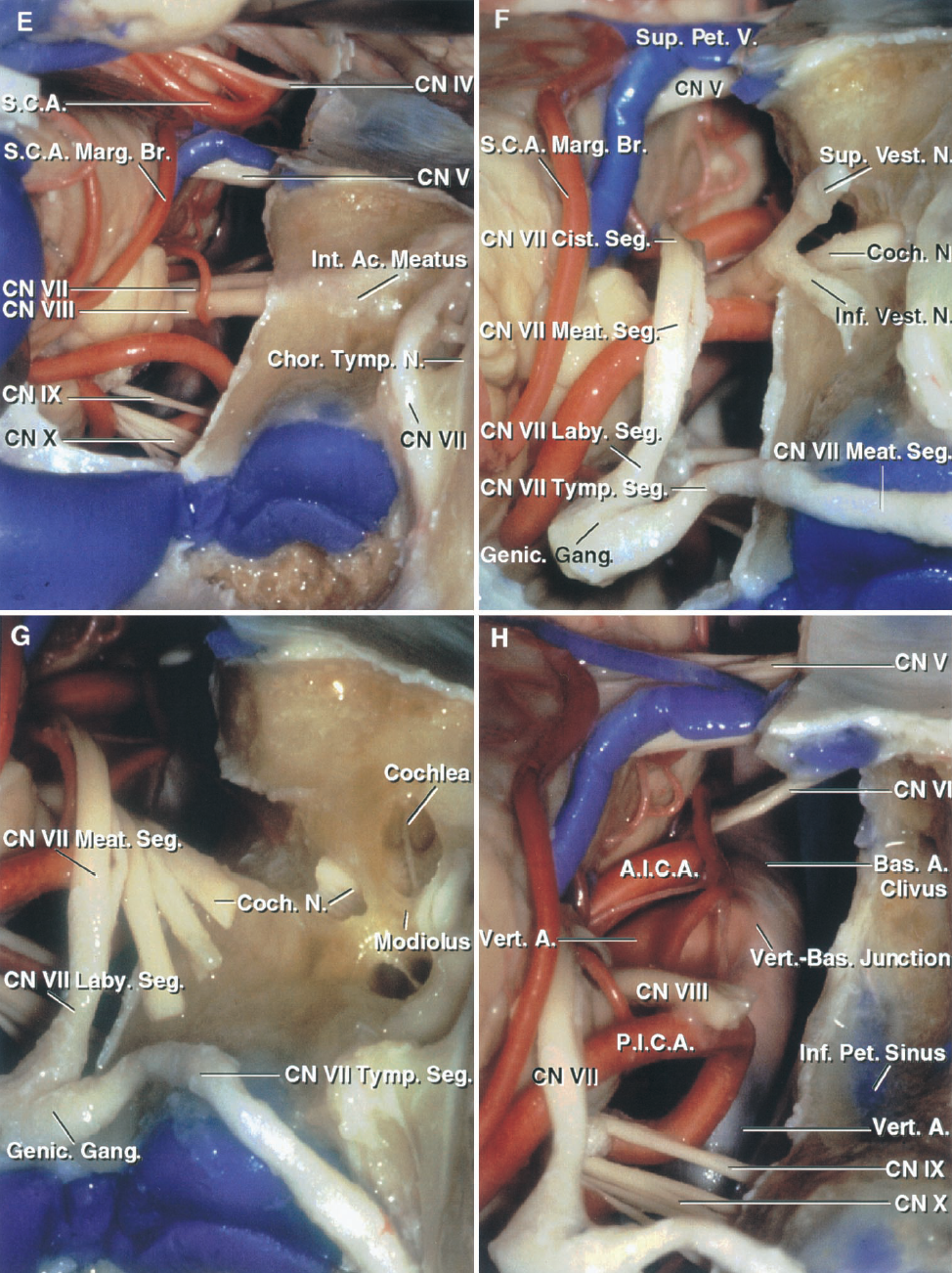 FIGURE 8.14. E–H. Presigmoid approach. E, the labyrinthectomy has been completed to expose the internal acoustic meatus. F, the dura lining the meatus has been opened and the facial nerve has been transposed posteriorly. The facial segments are the cisternal segment located in the cistern medial to the meatal porus, the meatal segment that extends laterally from the porus to the meatal fundus, the labyrinthine segment that is located between the fundus and the geniculate ganglion, the tympanic segment that arises at the ganglion and the sharp turn, the genu, and passes between the lateral semicircular canal and the oval window, and the mastoid segment that descends to exit the stylomastoid foramen. The labyrinthine segment courses between the semicircular canals and vestibule on its posterolateral side and the cochlea on its anteromedial margin. The superior and inferior vestibular nerves have lost their end organs with the drilling of the semicircular canals and vestibule. The cochlear nerve passes laterally to enter the cochlea, which is still preserved in the bone anteromedial to the fundus of the meatus. G, the cochlear nerve has been divided and reflected and bone removed to expose the cochlea. H, the transcochlear exposure, completed by removing the cochlea and surrounding petrous apex, provides access to the front of the brainstem and vertebrobasilar junction, but at the cost of loss of hearing due to the labyrinthectomy and almost certain temporary or permanent facial weakness associated with the posterior transposition of the facial nerve.