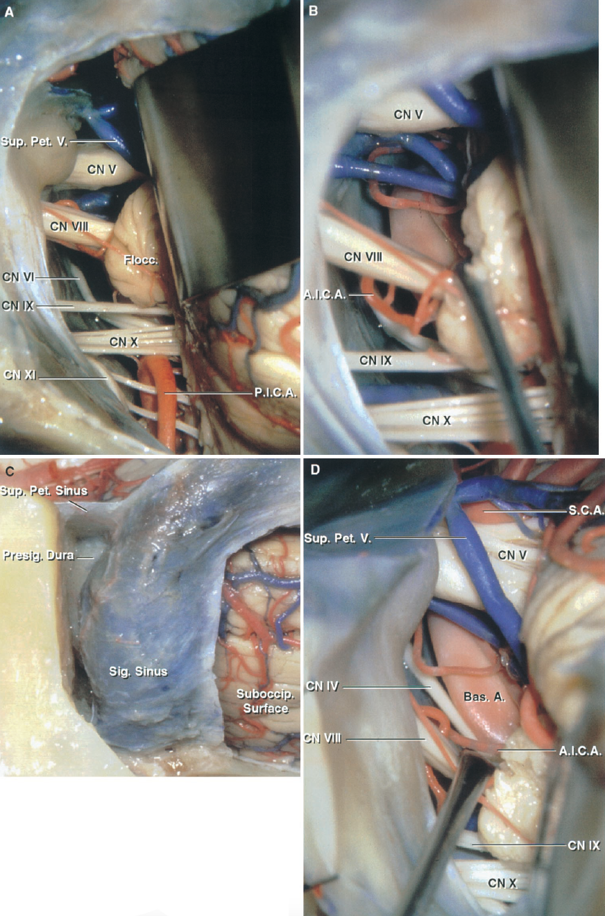 FIGURE 8.15. A–D. Comparison of the retrosigmoid approach and the minimal mastoidectomy,retrolabyrinthine, translabyrinthine, and transcochlearapproach modifications of the presigmoid approach. A, retrosigmoid approach. The left cerebellum has been elevated to expose the cranial nerves V through XI in the cerebellopontine angle. The illustrations from each step are to be compared with the views from the other modifications of the approach. B, the facial and vestibulocochlear nerves and the flocculus have beenretracted to expose the side of the basilar artery. C, for the minimal mastoidectomy, only enough bone is removed in front of the sigmoid sinus to open the presigmoid dura and divide the superior petrosal sinus and tentorium. D, the presigmoid dura has been opened and the sigmoid sinus has been retracted posteriorly. The view is approximately the same as that seen with the retrosigmoid exposure. The retrosigmoid approach provides a better view of the nerves entering the jugular foramen. A., artery; A.I.C.A., anteroinferior cerebellar artery; Bas., basilar; Cist., cisternal; CN, cranial nerve; Coch., cochlear; Flocc., flocculus; Inf., inferior; Laby., labyrinthine; Lat., lateral; Mast., mastoid; Meat., meatal; N., nerve; Pet., petrosal; P.I.C.A., posteroinferior cerebellar artery; Post., posterior; Presig., presigmoid; S.C.A., superior cerebellar artery; Seg., segment; Sig., sigmoid; Suboccip., suboccipital; Sup., superior; Tymp., tympanic; V., vein; Vest., vestibular.
