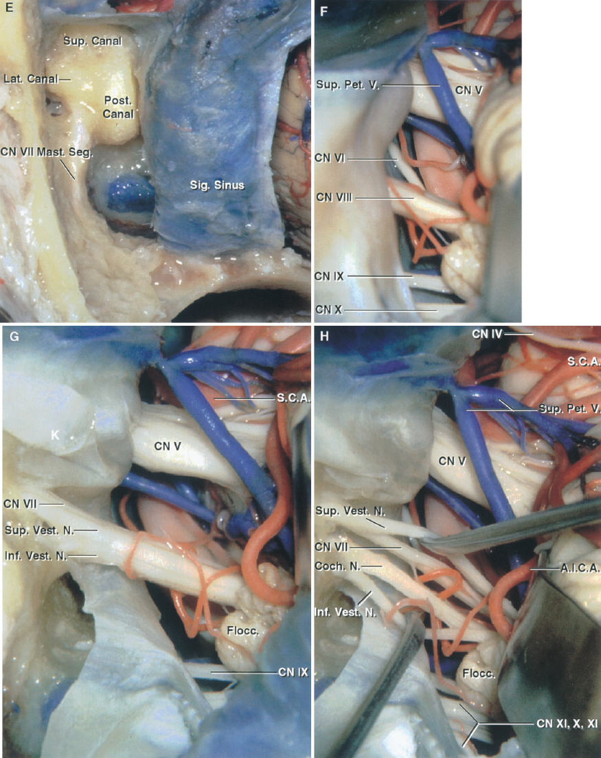 FIGURE 8.15. E–H. Comparison of the retrosigmoid approach and the minimal mastoidectomy, retrolabyrinthine, translabyrinthine, and transcochlear approach modifications of the presigmoid approach. E, the bony capsule around the semicircular canals and the facial nerve have been exposed for the retrolabyrinthine variant of the presigmoid approach. F, the exposure with the retrolabyrinthine version does not differ significantly from that achieved with the minimal mastoidectomy. G, the semicircular canals and vestibule have been removed and the dura lining the internal acoustic meatus has been opened to complete the translabyrinthine exposure. This yields an exposure of the internal acoustic meatus but provides only minimal improvement in the exposure of the structures medial to the porus of the meatus. H, the nerves have been separated beginning laterally at the fundus of the meatus and extending the cleavage plane medially toward the brainstem. The superior vestibular nerve is behind the facial nerve and the inferior vestibular nerve is behind the cochlear nerve.