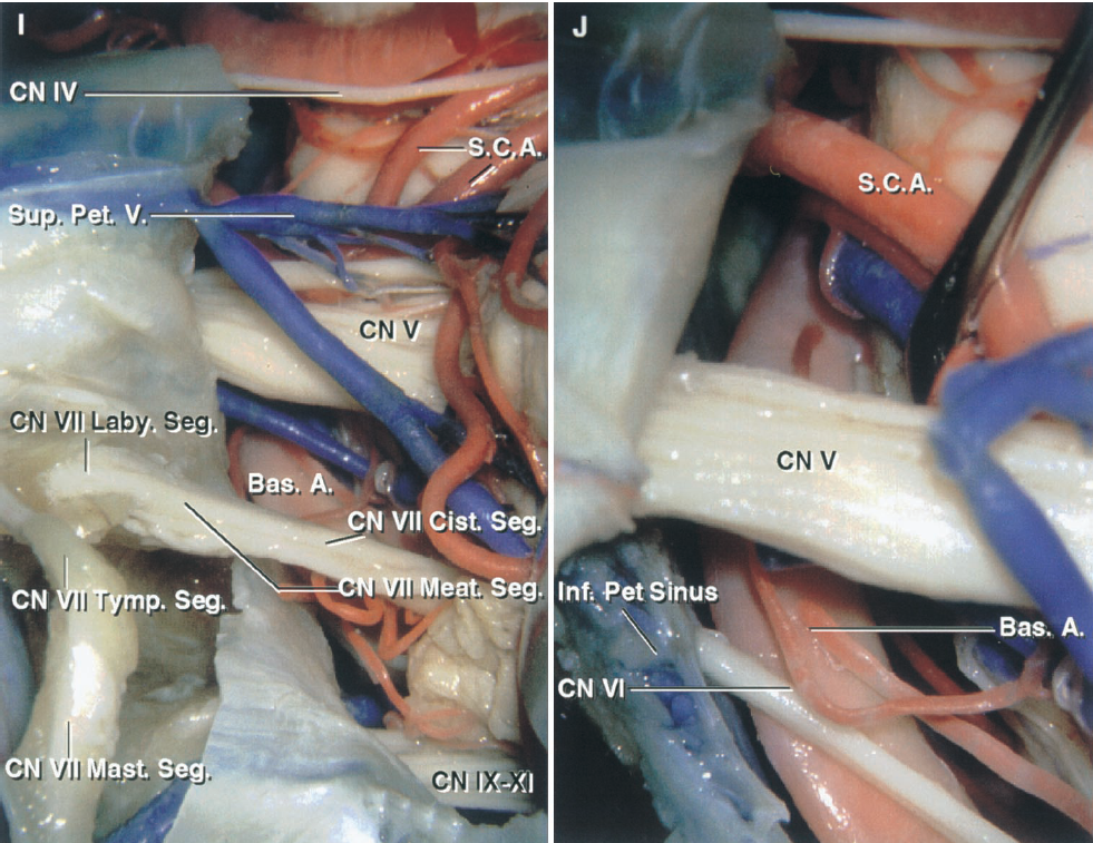 FIGURE 8.15. I and J. Comparison of the retrosigmoid approach and the minimal mastoidectomy, retrolabyrinthine, translabyrinthine, and transcochlear approach modifications of the presigmoid approach. I, the labyrinthine, tympanic, and mastoid segments of the facial nerve have been exposed in preparation for the posterior transposition of the nerve needed to complete the transcochlear exposure. J, the facial nerve has been transposed and the cochlea and petrous apex removed to complete the transcochlear exposure of the anterior aspect of the brainstem and the basilar artery.