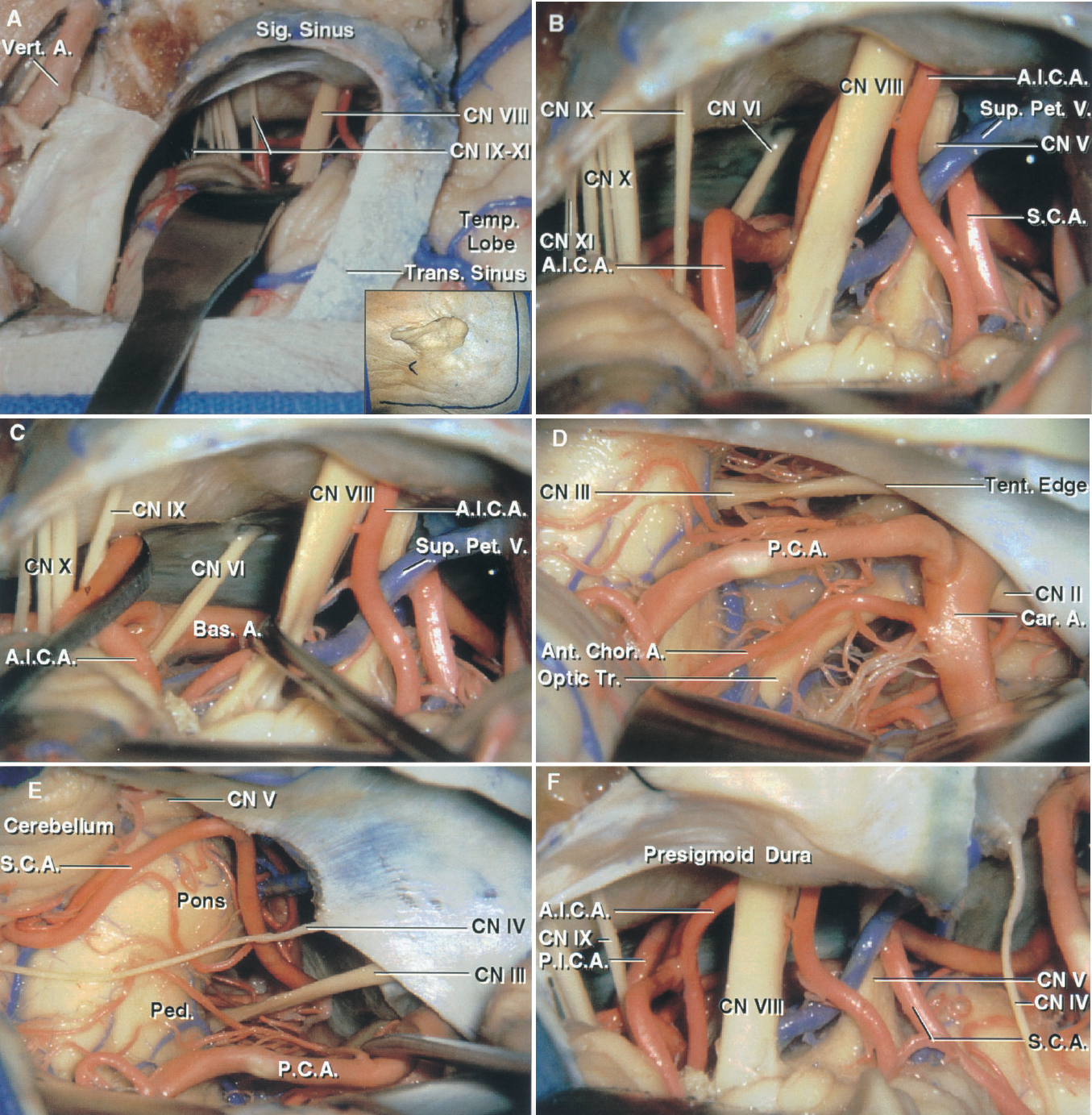 FIGURE 8.16. A–F. Comparison of the retrosigmoid and the various modifications of the presigmoid exposure. The modifications of the presigmoid approach include the minimal mastoidectomy, retrolabyrinthine, partial labyrinthine, translabyrinthine, modified transcochlear, and the full transcochlear approach with facial nerve transposition. A, the scalp incision (insert) is positioned for a supra- and infratentorial exposure through a temporo-occipital craniotomy. A temporo-occipital craniotomy has been completed and the dura opened to expose the temporal lobe and the retrosigmoid area. The transverse and sigmoid sinuses have been preserved. The cerebellum has been retracted to expose the nerves in the cerebellopontine angle. B, enlarged view of the retrosigmoid exposure to compare with the exposure obtained with the various modification of the presigmoid approach. C, in the retrosigmoid exposure the vestibulocochlear nerve has been elevated and the glossopharyngeal nerve depressed to expose the basilar artery at the origin of the AICA. D, subtemporal exposure. The temporal lobe has been elevated to expose the optic tract and oculomotor nerve and the PCA, internal carotid, and anterior choroidal arteries. E, the tentorium has been opened while preserving the trochlear nerve. The SCA courses below and the PCA above the oculomotor and trochlear nerves. F, minimal mastoidectomy modification of the presigmoid approach. The minimal mastoidectomy approach is completed by removing only enough bone in the front of the sigmoid sinus so that the presigmoid dura can be opened to expose the posterior cranial fossa. The bony capsule of the labyrinth is not exposed in the minimal mastoidectomy as it is in the retrolabyrinthine approach. The exposure shown with the minimal mastoidectomy in this figure is to be compared with the retrosigmoid exposure shown in B. A., artery; Ac., acoustic; A.I.C.A., anteroinferior cerebellar artery; Ant., anterior; Bas., basilar; Car., carotid; Chor., 