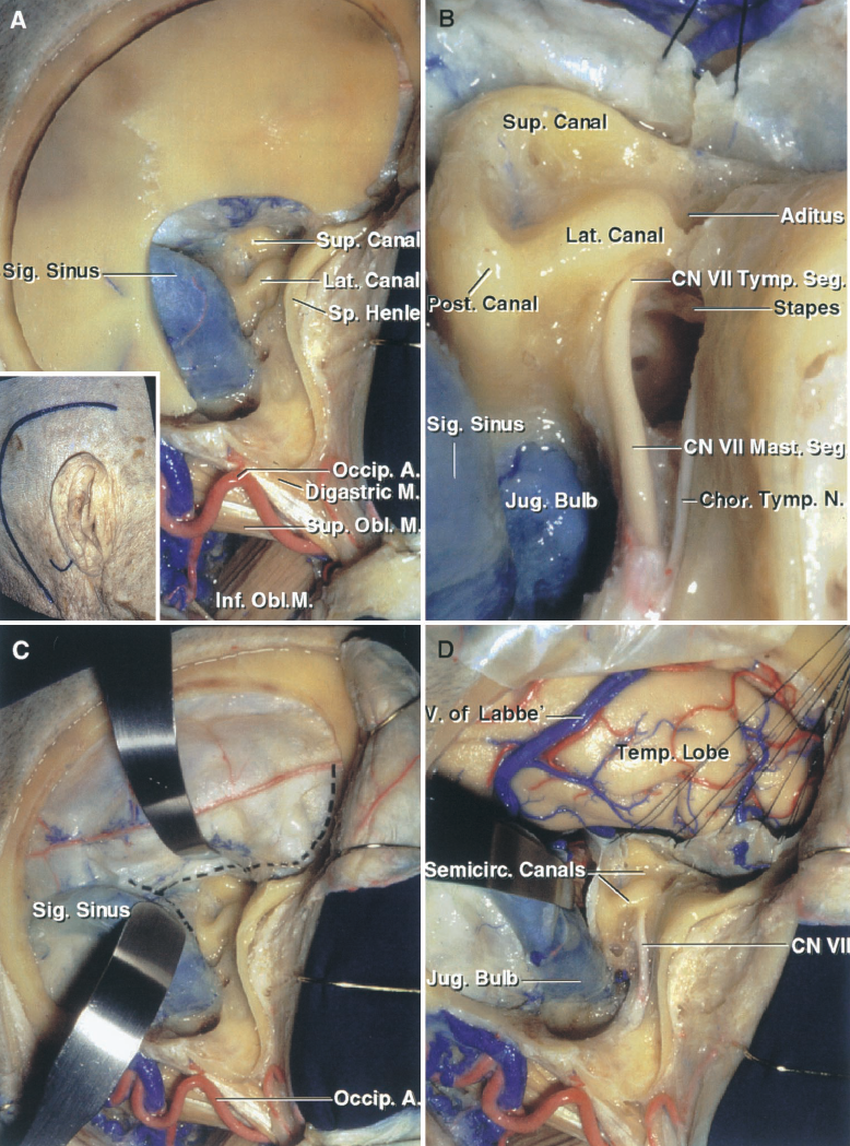 FIGURE 8.17. A–D. Combined presigmoid and far-lateral approach. A, the insert shows the site of the scalp incision and mastoid tip. The scalp flap has been reflected forward. The mastoidectomy exposes the dense cortical bone housing the semicircular canals. The bone flap is outlined. The occipital artery courses backward between the digastric and superior oblique. B, enlarged view. The tympanic segment of the facial nerve courses below the lateral canal. The chorda tympani arises from the mastoid segment of the facial nerve. The mastoid antrum, which has been drilled away, opens through the aditus into the epitympanic part of the tympanic cavity. C, the presigmoid and temporal dural incisions have been outlined. D, the temporal and presigmoid dura has been opened. One goal of the procedure is to preserve the vein of Labbe, which empties into the transverse sinus. A., artery; A.I.C.A.,anteroinferior cerebellar artery; Atl-Occip., atlanto-occipital; Cap., capitis; Car., carotid; Chor., chorda; Cist., cisternal; CN, cranial nerve; Epitymp., epitympanic; For., foramen; Gang., ganglion; Genic., geniculate; Hypogl., hypoglossal; Inf., inferior; Jug., jugular; Laby., labyrinthine; Lat., lateral; Lev., levator; M., muscle; Meat., meatal; Memb., membrane; Men., meningeal; N., nerve; Obl., oblique; Occip., occipital; P.C.A., posterior cerebral artery; P.I.C.A., posteroinferior cerebellar artery; Plex., plexus; Post., posterior; Rec., rectus; S.C.A., superior cerebellar artery; Scap., scapula; Seg., segment; Semicirc., semicircular; Sig., sigmoid; Sp., spine; Suboccip., suboccipital; Sup., superior; Temp., temporal; Trans., transverse; Tymp., tympani, tympanic; V., vein; Vert., vertebral; Vest., vestibular.