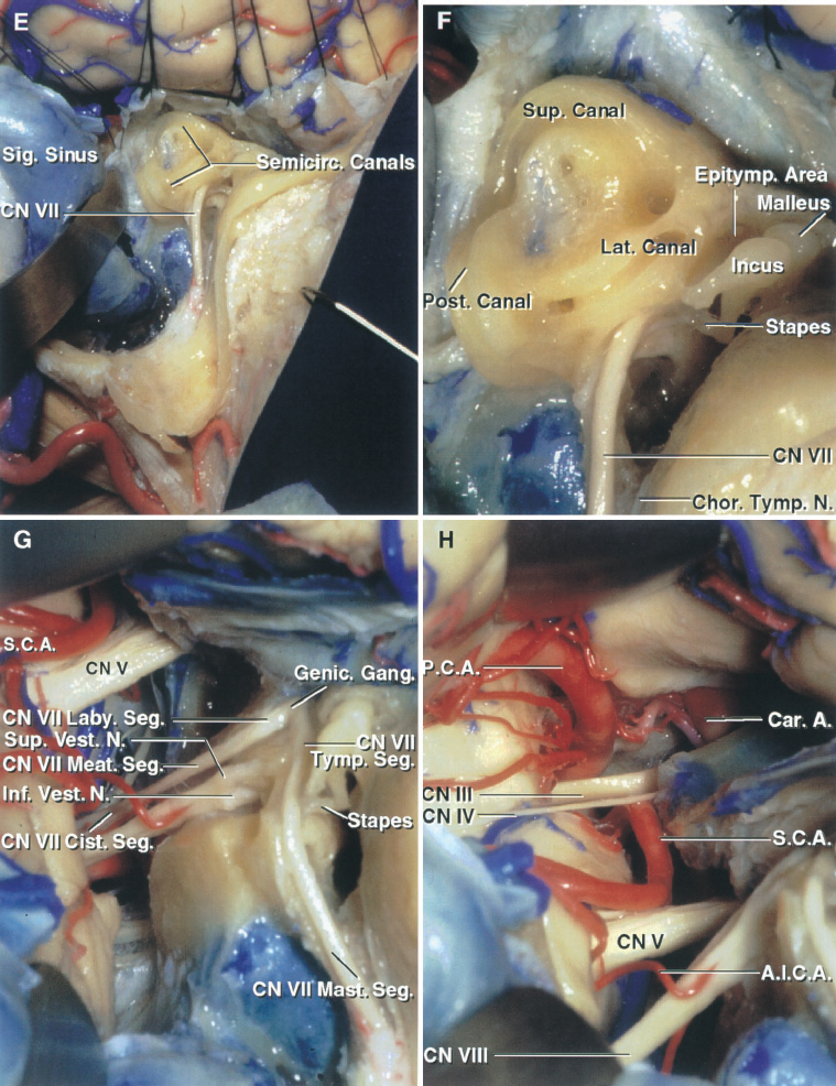 FIGURE 8.17. E–H. Combined presigmoid and far-lateral approach. E, the dural incision has been extended through Trautman's triangle and across the superior petrosal sinus and tentorium, taking care to preserve the vein of Labbe and the trochlear nerve. The semicircular canals have been opened. F, enlarged view. The posterior canal faces the posterior fossa lateral to the internal acoustic meatus. The superior canal projects upward, below the arcuate eminence, toward the floor of the middle fossa. The lateral canal is a useful landmark for identifying the tympanic segment of the facial nerve, which courses between the canal and the stapes sitting in the oval window. The epitympanic area opens through the aditus into the mastoid antrum. G, the labyrinthectomy has been completed and the dura lining the meatus opened to expose the cisternal, meatal, labyrinthine, tympanic, and mastoid segments of the facial nerve. The SCA courses above the trigeminal nerve. H, enlarged view along the opened tentorial incisura. The oculomotor and trochlear nerves course between the PCA and SCA. The SCA rests against the upper surface of the trigeminal nerve.