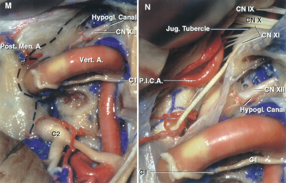 FIGURE 8.17. M and N, combined presigmoid and far-lateral approach. M, a suboccipital craniotomy has been completed, the posterior arch and posterior ramus of the transverse process of the atlas removed, and the dural incision has been outlined. The posterior meningeal artery arises before the vertebral artery penetrates the dura. The C1 nerve root adheres to the lower margin of the vertebral artery. N, the dura has been opened and the nerves passing toward the jugular foramen exposed. Bone has been removed above the atlanto-occipital joint to expose the hypoglossal nerve in the hypoglossal canal. The accessory rootlets cross the jugular tubercle on their way to the jugular foramen.
