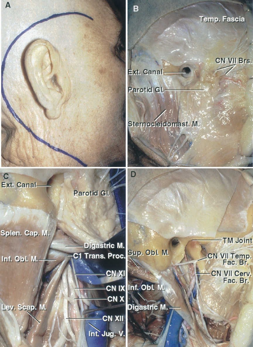 FIGURE 8.19. A–D. Anatomic basis of the postauricular transtemporal approach. A, the incision sweeps widelyaround the posterior margin of the ear so that a retrosigmoid, presigmoid, and far-lateral exposure can be obtained behind the ear, and a subtemporal, infratemporal, pterygopalatine, and orbital exposure can be obtained in front of the ear. B, the scalp flap has been reflected forward, the external canal transected, and the parotid gland and superficial branches of the facial nerve exposed. C, the sternocleidomastoid muscle has been reflected. The neck dissection exposes the internal jugular vein, C1 transverse process, and the glossopharyngeal, vagus, accessory, and hypoglossal nerves. The accessory nerve is retracted forward. D, the parotid gland has been removed to expose the temporofacial and cervicofacial trunks of the facial nerve and the temporomandibular joint.The splenius capitis muscle has been reflected downward to expose thesuperior and inferior oblique muscles, which insert on the transverse process of C1 and border the suboccipital triangle in which the vertebral artery courses. A., artery; Alv., alveolar; Aur., auricular; Br., branch; Brs., branches;Cap., capitis; Car., carotid; Cerv., cervical; Chor., chorda, choroid; CN, cranial nerve; Coch., cochlear; Cond., condyle; Endolymph., endolymphatic; Eust., eustachian; Ext., external; Fac., facial; Gang., ganglion; Genic., geniculate; Gl., gland; Gr., greater;Hypogl., hypoglossal; Inf., inferior; Infraorb., infraorbital; Infratemp.,infratemporal; Int., internal; Jug., jugular; Laby., labyrinthine; Lat., lateral; Lev., levator; M., muscle; Mandib., mandibular; Mast., mastoid; Max., maxillary; Med., medial; N., nerve; Obl., oblique; Occip., occipital; Pal., palatini; P.C.A., posterior cerebral artery; Ped., peduncle; Pet., petrosal, petrous; P.I.C.A., posteroinferior cerebellar artery; Plex., plexus; Post., posterior; Proc., process; Pteryg., pterygoid; Pterygopal., pterygopalatine; Rec., rectus; S.C.A