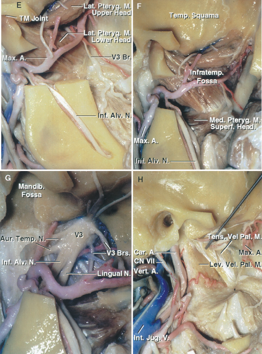 FIGURE 8.19. E–H. Anatomic basis of the postauricular transtemporal approach. E, a segment of the mandibular ramus has been removed to expose the upper and lower head of the lateral pterygoid and the maxillary artery in the infratemporal fossa. The inferior alveolar canal and nerve have been exposed. F, the mandibular ramus, in front of the inferior alveolar canal, has been removed to provide a wider exposure of the inferotemporal fossa. The upper head of the lateral pterygoid muscle passes backward from the inferotemporal surface of the greater sphenoid wing and the lower head passes upward from the lateral pterygoid plate. Both heads insert on the mandibular neck and the joint capsule. The superficial head of the medial pterygoid muscle passes from the maxillary tuberosity and pterygoid plate to the mandibular angle. The deep head of the medial pterygoid arises from the pterygoid fossa between the pterygoid plates. G, enlarged view of the infratemporal area after removal of the mandibular condyle and lateral pterygoid muscles. The branches of the mandibular nerve are exposed below the foramen ovale. The largest branches are the lingual and superior alveolar nerves, which are predominantly sensory. The auriculotemporal nerve arises as two roots, which often pass around the middle meningeal artery before joining. H, the pterygoid muscles, a segment of the maxillary artery, and the mandibular and facial nerve branches have been reflected or removed to expose the internal jugular vein exiting the jugular foramen on the medial side of the stylomastoid foramen, the internal carotid artery ascending to enter the carotid canal, the tensor and levator veli palatini descending from their origin bordering the eustachian tube, and the terminal segment of the maxillary artery entering the pterygopalatine fossa.