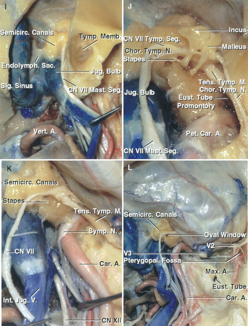 FIGURE 8.19. I–L. Anatomic basis of the postauricular transtemporal approach. I, a mastoidectomy has been completed to expose the semicircular canals and the mastoid segment of the facial canal. The endolymphatic sac sits under the presigmoid dura. J, the external canal has been resected to expose the structures in the tympanic cavity. The tympanic segment of the facial nerve courses between the lateral semicircular canal and the stapes sitting in the oval window. The chorda tympani arises from the mastoid segment of the facial nerve, passes forward along the inner surface of the tympanic membrane and the neck of the malleus to enter its anterior canaliculus, exits the skull along the petrotympanic suture, and joins the lingual nerve in the infratemporal fossa. The promontory overlies the basal turn of the cochlea. The tendon of the tensor tympani muscle makes a right-angle turn around the trochleiform process to insert on the malleus. K, the incus and malleus have been removed while preserving the stapes and the tensor tympani muscle. The petrous carotid has been exposed. The nerves exiting the jugular foramen have been retracted forward to expose the hypoglossal nerve exiting the hypoglossal canal. L, a frontotemporal craniotomy has been completed and the floor of the middle cranial fossa removed. The semicircular canals have been exposed above the jugular bulb and the stapes has been removed from the oval window. The maxillary nerve has been exposed in the pterygopalatine fossa. The membranous wall of the eustachian tube has been opened to expose the tube's opening into the nasopharynx.