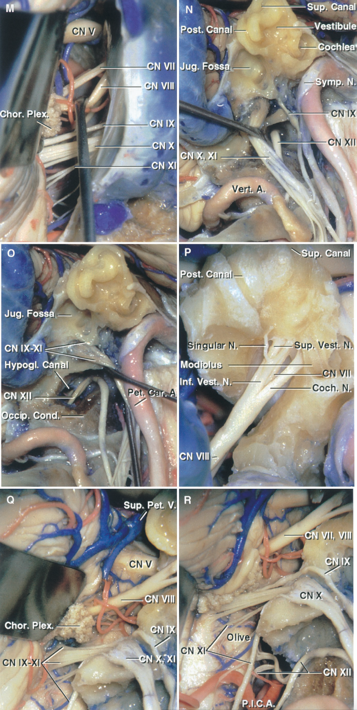 FIGURE 8.19. M–R. Anatomic basis of the postauricular transtemporal approach. M, a retrosigmoid craniotomy has been completed and the nerves in the cerebellopontine angle exposed. The vestibulocochlear nerve has been depressed to expose the facial nerve. N, the facial nerve has been reflected forward out of the facial canal. The promontory has been drilled to expose the cochlea and the vestibule. Both ends of the semicircular canals open into the vestibule, as does the basal turn of the cochlea. The jugular bulb has been removed to expose the jugular fossa in which the bulb resides. The jugular bulb is located below the vestibule. The nerves exiting the jugular foramen have been reflected backward to expose the hypoglossal nerve exiting the hypoglossal canal. The nerves passing through the jugular foramen and hypoglossal canal exit the skull on the medial side of the internal jugular vein and descend between the internal carotid artery and internal jugular vein. O, the bone above the occipital condyle has been drilled to expose the hypoglossal nerve in the hypoglossal canal. P, the posterior wall of the internal acoustic meatus has been removed to provide this presigmoid inferolateral view of the nerves in the internal meatus. The cochlear nerve separates off the main bundle of the vestibulocochlear nerve and penetrates the modiolus. The inferior vestibular nerve divides into the singular nerveto the posterior ampullae and a branch to the saccule. The superior vestibular nerve innervates the superior and lateral ampullae and sends a branch to the utricle. Q, the medial wall of the jugular fossa has been removed and the nerves passing through the jugular foramen have been exposed. The glossopharyngeal nerve passes through the foramen anterior to the vagus and accessory nerves. A large superior petrosal vein ascends to the superior petrosal sinus. R, the glossopharyngeal, vagus, and accessory rootlets arise behind and the hypoglossal rootlets arise anterior to the inf