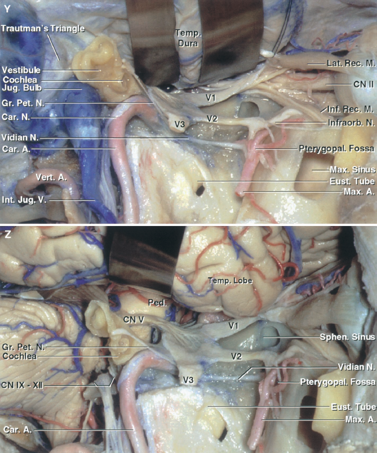 FIGURE 8.19. Y and Z, anatomic basis of the postauricular transtemporal approach. Y, overview before opening the dura. The postauricular approach offers the potential for providing retrosigmoid, presigmoid, and far-lateral exposures and can be used to access the infratemporal and pterygopalatine fossae, the orbit, and the subtemporal areas. In this case, the exposure extends from the retrosigmoid area forward to the orbit. The maxillary sinus has been opened below the orbital floor. Z, overview of exposure after opening the dura.