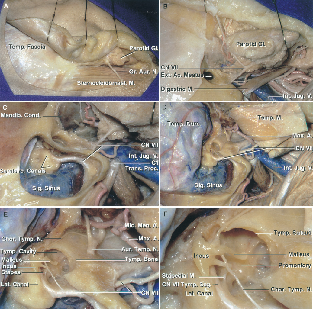 FIGURE 8.20. A–F. Postauricular transtemporal approach. This exposure includes the transtemporal and infratemporal approaches in combination with a craniotomy. A, the scalp flap has been reflected forward to expose the sternocleidomastoid, parotid gland, and the greater auricular nerve. B, the external canal has been divided to reflect the flap forward for a parotid and neck dissection that exposes the facial nerve and its trunks, the posterior digastric belly, and the internal jugular vein. C, the mastoidectomy has been completed to expose the presigmoid dura, the sigmoid sinus, and the semicircular canals. The mandibular condyle has been resected to provide access to the infratemporal fossa. D, a temporo-occipital craniotomy has been completed, the zygomatic arch opened, and the temporalis muscle reflected to expose the maxillary artery and pterygoid muscles in the infratemporal fossa. E, enlarged view of the temporal and infratemporal exposures. The posterior wall of the external canal has been removed. The auriculotemporal branch of the mandibular nerve is often split into two rootlets by the middle meningeal artery. F, enlarged view of the tympanic cavity. The anterior part of the lateral semicircular canal is located above the tympanic segment of the facial nerve. The promontory overlies the basal cochlear turn. A., artery; Ac., acoustic; Aur., auricular; Bas., basilar; Car., carotid; Chor., chorda; CN, cranial nerve; Cond., condyle; Ext., external; Gl., gland; Gr., greater; Inf., inferior; Int., internal; Jug., jugular; Lat., lateral; M., muscle; Mandib., mandibular; Mast., mastoid; Max., maxillary; Mid., middle; Men., meningeal; N., nerve; Pet., petrosal, petrous; Proc., process; Seg., segment; Semicirc., semicircular; Sig., sigmoid; Sternocleidomast., sternocleidomastoid; Sup., superior; Temp., temporal; Trans., transverse; Tymp., tympani, tympanic; V., vein; Vert., vertebral.