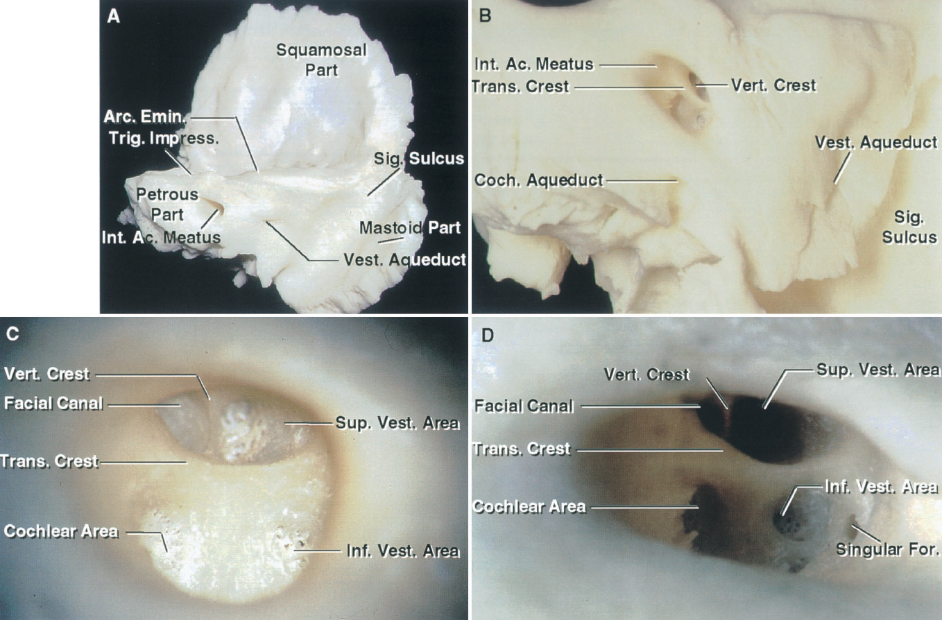 FIGURE 8.2. A-D. Temporal bone. A, posterior view of a right temporal bone. The squamosal part forms part of the floor and lateral wall of the middle fossa. The sigmoid sulcus descends along the posterior surface of the mastoid portion. The internal acoustic meatus enters the central portion of the petrous part of the bone. The trigeminal impression and arcuate eminence are located on the upper surface of the petrous part. The vestibular aqueduct connects the vestibule in the petrous part with the endolymphatic sac, which sits on the posterior petrous surface inferolateral to the internal acoustic meatus. B, enlarged view. The transverse crest separates the meatal fundus into a superior part where the facial canal and superior vestibular areas are situated, and an inferior part where the cochlear and inferior vestibular areas are located. The vertical crest separates the facial and superior vestibular areas. C, enlarged view of another internal acoustic meatus. The transverse crest divides the meatal fundus into superior and inferior parts. The anterior part above the transverse crest is the site of the facial canal and the posterior part is the site of the superior vestibular area. Below the transverse crest, the cochlear area is anterior and the inferior vestibular area is posterior. D, another internal acoustic meatus. The view is directed to expose the singular foramen, for the singular branch of the inferior vestibular nerve that innervates the posterior ampullae. The inferior vestibular nerve also has a saccular and, occasionally, a utricular branch. Ac., acoustic; Arc., arcuate; CN, cranial nerve; Coch., cochlear; Emin., eminence; Ext., external; For., foramen; Impress., impression; Inf., inferior; Int., internal; Mandib., mandibular; Occipitomast., occipitomastoid; Parietomast., parietomastoid; Proc., process; Sig., sigmoid; Sp., spine; Sup., superior; Supramast., supramastoid; Trans., transverse; Trig., trigeminal; Vert., vertebral; Vest., vestibular.