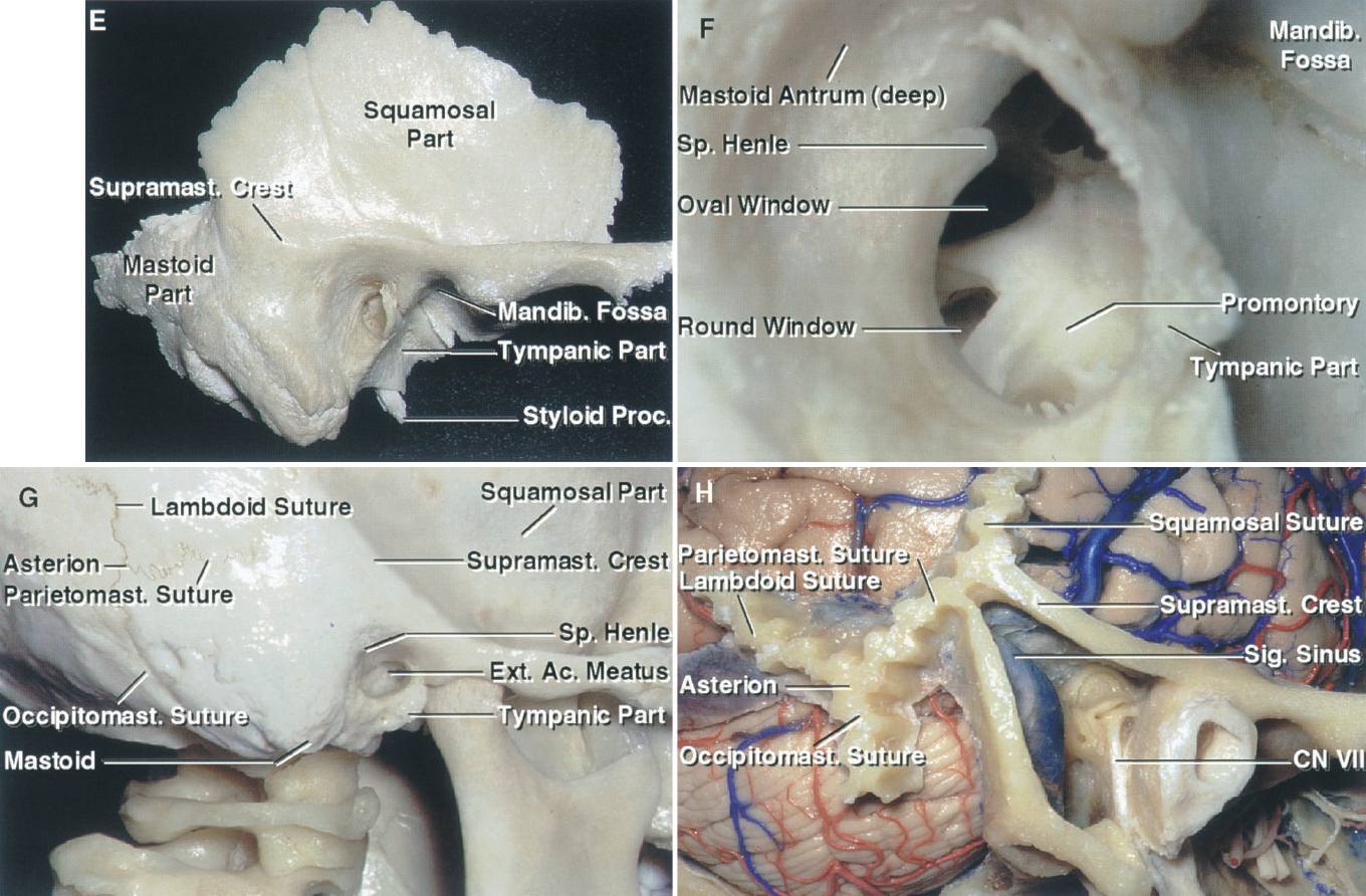 FIGURE 8.2.E-H. E, lateral view of the temporal bone. The squamosal part forms part of the lateral wall of the middle fossa, the posterior part of the zygomatic arch, and the upper part of the mandibular fossa. The tympanic part forms the posterior wall of the mandibular fossa and almost all of the wall of the external canal. The styloid process is ensheathed at its base by the tympanic part and projects downward, serving as the attachment of several muscles. The mastoid part is located posteriorly and contains the mastoid air cells that coalesce at the mastoid antrum. F, enlarged view of the external auditory canal. The spine of Henley, an excellent landmark for locating the deep site of the lateral canal and tympanic segment of the facial nerve, is located along the posterosuperior margin of the external canal. The mastoid antrum is located deep to the depressed area, called the suprameatal triangle, located behind the spine of Henley. The view into the canal exposes the tympanic cavity, which has the promontory overlying the basal turn of the cochlea and the oval and round windows in its medial wall. G, lateral surface of the temporal bone in the intact skull. The tympanic part forms the anterior and lower and part of the posterior wall of the external canal. The mandibular fossa is formed above and anteriorly by the squamosal part and behind by the tympanic part. The mastoid antrum is located posterosuperior to the spine of Henley, between the spine of Henley and the anterior part of the supramastoid crest. The asterion, the junction of the lambdoid, parietomastoid, and occipital mastoid sutures, is usually located over the lower half of the junction of the sigmoid and transverse sinuses. The midpoint of the parietal mastoid suture is usually located at the anterior margin of the junction of the transverse and sigmoid sinuses, and the lateral edge of the petrous ridge is located at the junction of the squamosal suture and the supramastoid crest. H, the supra- an