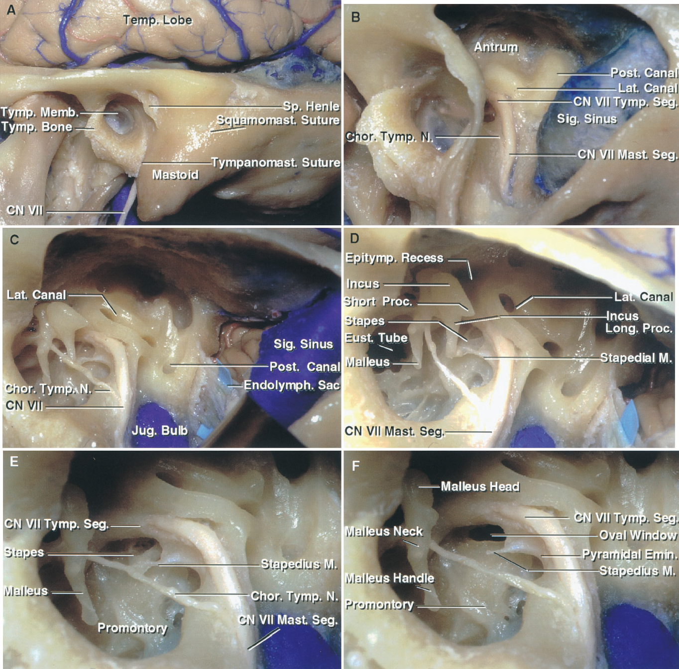 FIGURE 8.4. Tympanic cavity and mastoid antrum. A, the tympanic bone forms the anterior, lower, and part of the posterior wall of the external canal. The facial nerve exits the skull through the stylomastoid foramen, which is located medial to the tympanomastoid suture. The spine of Henley approximates the deep site of the tympanic facial segment and the lateral canal. The mastoid antrum is located between the posterosuperior wall of the external canal and middle fossa floor deep to the depression behind the spine of Henle. B, a mastoidectomy has been completed to expose the capsule of the posterior and lateral canals and the tympanic and mastoid facial segments. C, the posterior and superior wall of the external canal and the tympanic membrane have been removed while preserving the malleus and chorda tympani. The mastoid segment of the facial nerve descends through the facial canal and gives rise to the chorda tympani, which passes upward and forward across the tympanic membrane and malleus neck. D, enlarged view. The head of the incus articulates with the head of the malleus, the short process of the incus points backward toward the facial nerve, and the long process attaches to the stapes, which sits in the oval window. The stapedial muscle passes forward below the tympanic segment of the facial nerve and attaches to the neck of the stapes. E, the incus has been removed to expose the stapes sitting in the oval window. The chorda tympani crosses the neck of the malleus. The promontory is located superficial to the basal turn of the cochlea. The labyrinth and fundus of the internal meatus are located medial to the tympanic cavity. A line directed medially through the skull along the long axis of the external meatus will also approximate the site of the long axis of the internal meatus on the medial side of the promontory and acousticovestibular labyrinth. F, the stapes has been removed from the oval window. The handle of the malleus attaches to the tympanic membran