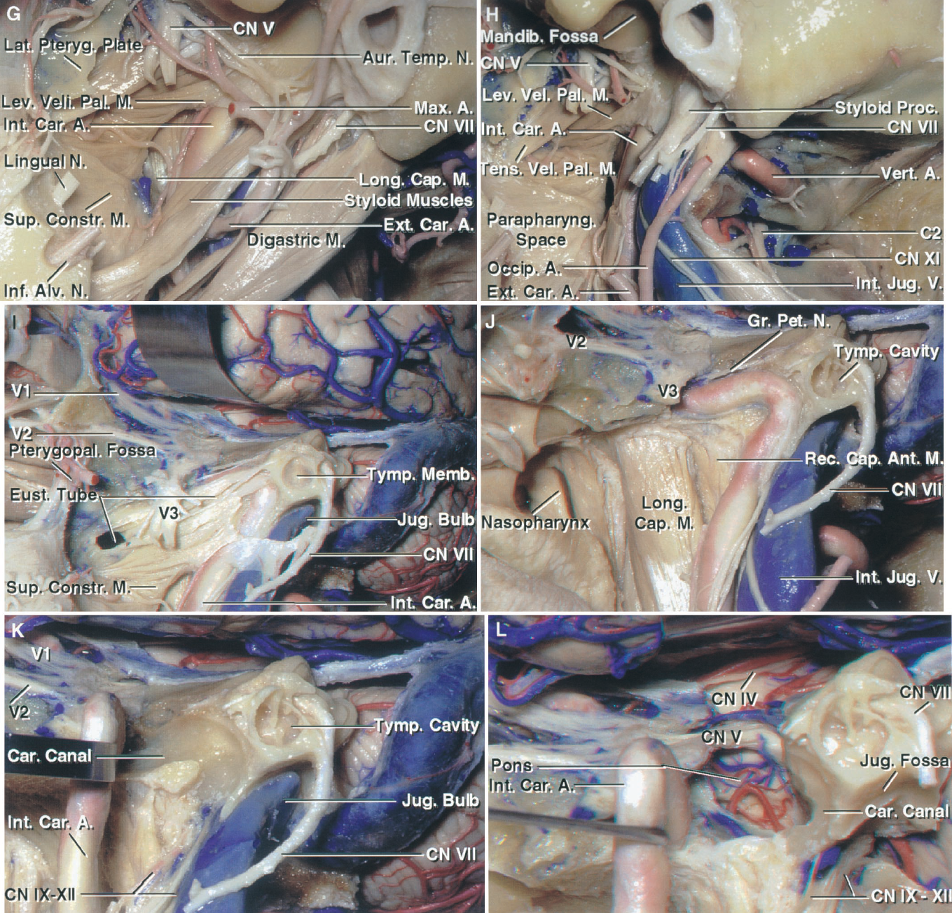 FIGURE 8.5. G–L. Muscular and osseous relationships. G, the mandibular condyle and ramus have been removed to expose the styloid process and attached muscles. The pterygoid muscles and some branches of the mandibular nerve have been removed to expose the auriculotemporal nerve, which splits into two roots that surround the middle meningeal artery. The levator veli palatini, which attaches the lower margin of the eustachian tube, is in the medial part of the exposure. The longus capitis is exposed medial to the internal carotid artery in the retropharyngeal area. H, the muscles that attach to the styloid process have been divided at their origin. The facial nerve crosses the lateral surface of the styloid process. The attachment of the tensor veli palatine to the skull base extends between the foramen ovale and the eustachian tube. I, the external auditory canal has been removed, but the tympanic membrane and cavity have been preserved. The levator veli palatine and part of the tensor veli palatine have been removed and the membranous part of the eustachian tube opened. The eustachian tube crosses anterior to and is separated from the petrous carotid by a thin shell of bone. The jugular bulb and lateral bend of the petrous carotid are located below the osseous labyrinth. The pterygopalatine fossa is exposed anteriorly. J, the eustachian tube has been resected and the mandibular nerve divided at the foramen ovale to expose the petrous carotid. This exposes the longus capitis and rectus capitis anterior, both of which are located behind the posterior pharyngeal wall. K, the petrous carotid has been reflected forward out of the carotid canal to expose the petrous apex medial to the carotid canal. L, the petrous apex and upper clivus have been drilled and the dura opened to expose the anterolateral aspect of the pons below the trigeminal nerve. The sigmoid sinus and the jugular bulb have been removed to expose the nerves exiting the jugular foramen.