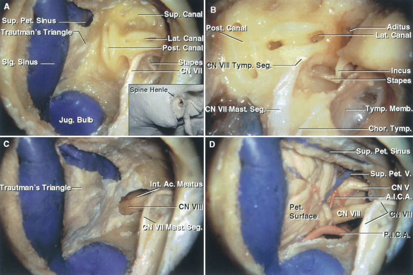 FIGURE 8.6. A–D. Translabyrinthine exposure. A, the insert shows the site of the exposure directed through the mastoid. The spine of Henley at the posterosuperior margin of the external meatus is a superficial landmark that approximates the deep site of the lateral semicircular canal and the tympanic segment of the facial nerve. The mastoidectomy has been completed. The superior petrosal and sigmoid sinuses, the jugular bulb, and the facial nerve are usually skeletonized in the approach, leaving a thin layer of bone over them. The semicircular canals, which are located in the cortical bone medial to the cancellous mastoid and the mastoid antrum, have been exposed. The dura between the sigmoid and superior petrosal sinuses, the jugular bulb, and the labyrinth, which faces the cerebellopontine angle, is referred to as Trautman's triangle. B, the mastoid antrum opens through the aditus into the epitympanic part of the tympanic cavity, which contains the upper part of the malleus and incus. The tympanic segment of the facial nerve passes between the lateral canal and the stapes in the oval window and then turns downward as the mastoid segment. The chorda tympani arises from the mastoid segment of the facial nerve and passes upward and forward along the deep surface of the tympanic membrane crossing the neck of the malleus. The incus, the head of which is located in the epitympanic area, has a long process that attaches to the stapes. C, the semicircular canals and vestibule have been removed and the dura lining the internal acoustic meatus has been opened to expose the vestibulocochlear nerve. D, the dura has been opened to expose the petrosal cerebellar surface and the structures in the cerebellopontine angle. Anatomic variants that limit the exposure include an anterior position of the sigmoid sinus, a high jugular bulb, or a low middle fossa plate. The jugular bulb may extend upward into the posterior wall of the internal acoustic meatus and be encountered as the pos