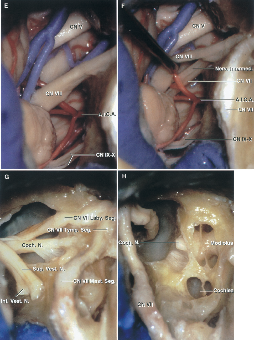FIGURE 8.6. E–H. Translabyrinthine exposure. E, enlarged view of the exposure in the cerebellopontine angle. In this case, the glossopharyngeal and vagus nerves can be seen, although, in the translabyrinthine exposure, the jugular bulb often obstructs the view of the nerves entering the jugular foramen. F, the vestibulocochlear nerve has been elevated to expose the facial nerve. G, the labyrinthine, tympanic, and mastoid segments of the facial nerve have been exposed in preparation for transposition of the nerve for a transcochlear approach. H, the facial nerve has been transposed backward and the bone anterior to the meatal fundus has been removed to expose the cochlea for a transcochlear approach in which the cochlea is removed to gain access to the side of the clivus and front of the brainstem. The cochlear nerve has been divided. The cochlear fibers innervating the cochlear duct pass through the modiolus.