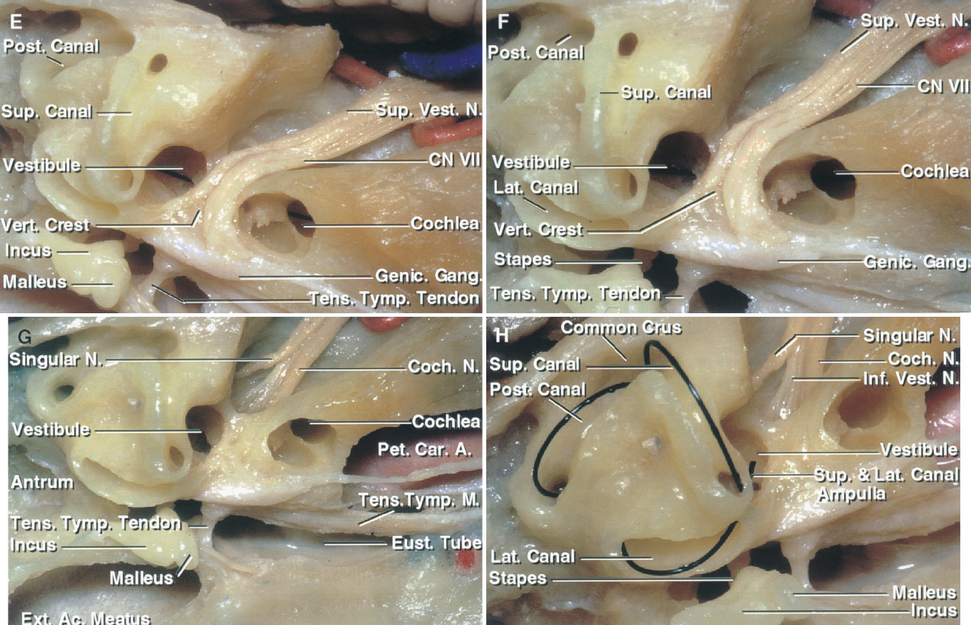 FIGURE 8.7. E–H. Middle fossa exposure of the temporal bone. E, enlarged view. The vestibule, into which the semicircular canals open, communicates below the meatal fundus with the cochlea. The vertical crest, often called Bill's bar, separates the superior vestibular and facial nerves at the meatal fundus. The tendon of the tensor tympani makes a right-angle turn around the trochleariform process in the medial margin of the tympanic cavity to insert on the malleus. F, enlarged view. The superior canal projects upward in the floor of the middle fossa. The lateral canal is situated above the tympanic segment of the facial nerve in the posteromedial part of the epitympanic area, and the posterior canal is located lateral to the posterior wall of the internal acoustic meatus. G, bone has been removed below the greater petrosal nerve to expose the petrous carotid. The tensor tympani muscle above and the eustachian tube below are layered along the anterior surface of the petrous carotid. H, enlarged view. Suture has been placed in the three semicircular canals. The anterior end of the superior and lateral canals and the lower end of the posterior canal are the site of the ampullae. The posterior end of the superior canal and the upper end of the posterior canal join to form a common crus. The facial and superior vestibular nerves have been removed to expose the cochlear and inferior vestibular nerves. The singular branch of the inferior vestibular nerve innervates the posterior ampullae. The superior vestibular nerve innervates the superior and lateral ampullae.