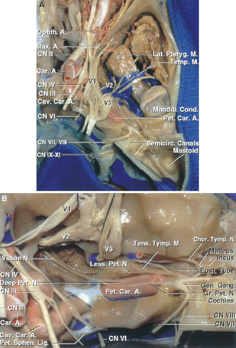 FIGURE 8.8 A, superior view of the temporal bone and infratemporal fossa and orbit. The floor of the middle fossa has been removed to expose the temporalis muscle in the temporal fossa and the pterygoid muscles and branches of the third trigeminal division in the infratemporal fossa. The posterior part of the middle fossa forming the upper surface of the temporomandibular joint has been removed to expose the mandibular condyle. The internal acoustic meatus extends laterally from the posterior surface of the temporal bone. The mastoid is located behind the external canal and lateral to the semicircular canals and vestibule. B, enlarged view. The trigeminal nerve has been reflected forward and bone has been removed over the eustachian tube, tensor tympani muscle, petrous carotid, and internal acoustic meatus. Dura has been removed from the lateral wall of the cavernous sinus to expose the trochlear, trigeminal, and oculomotor nerves in the sinus wall and the abducens nerve passing below the petrosphenoid ligament and through Dorello's canal. The greater petrosal nerve is joined by the deep petrosal branches of the carotid sympathetic plexus to form the vidian nerve, which passes forward in the vidian canal, which has been unroofed. The lesser petrosal nerve arises from the tympanic branch of the glossopharyngeal nerve, which passes across the promontory in the tympanic nerve plexus and regroups to cross the floor of the middle fossa, exiting the skull to provide parasympathetic innervation through the otic ganglion to the parotid gland. The tensor tympani muscle and eustachian are layered along, but are separated from, the anterior surface of the petrous carotid by a thin layer of bone. A., artery; Car., carotid; Cav., cavernous; Chor., chorda; CN, cranial nerve; Cond., condyle; Eust., eustachian; Gang., ganglion; Gen., geniculate; Gr., greater; Lat., lateral; Less., lesser; Lig., ligament; M., muscle; Mandib., mandibular; Max., maxillary; N., nerve; Ophth., ophthalmi