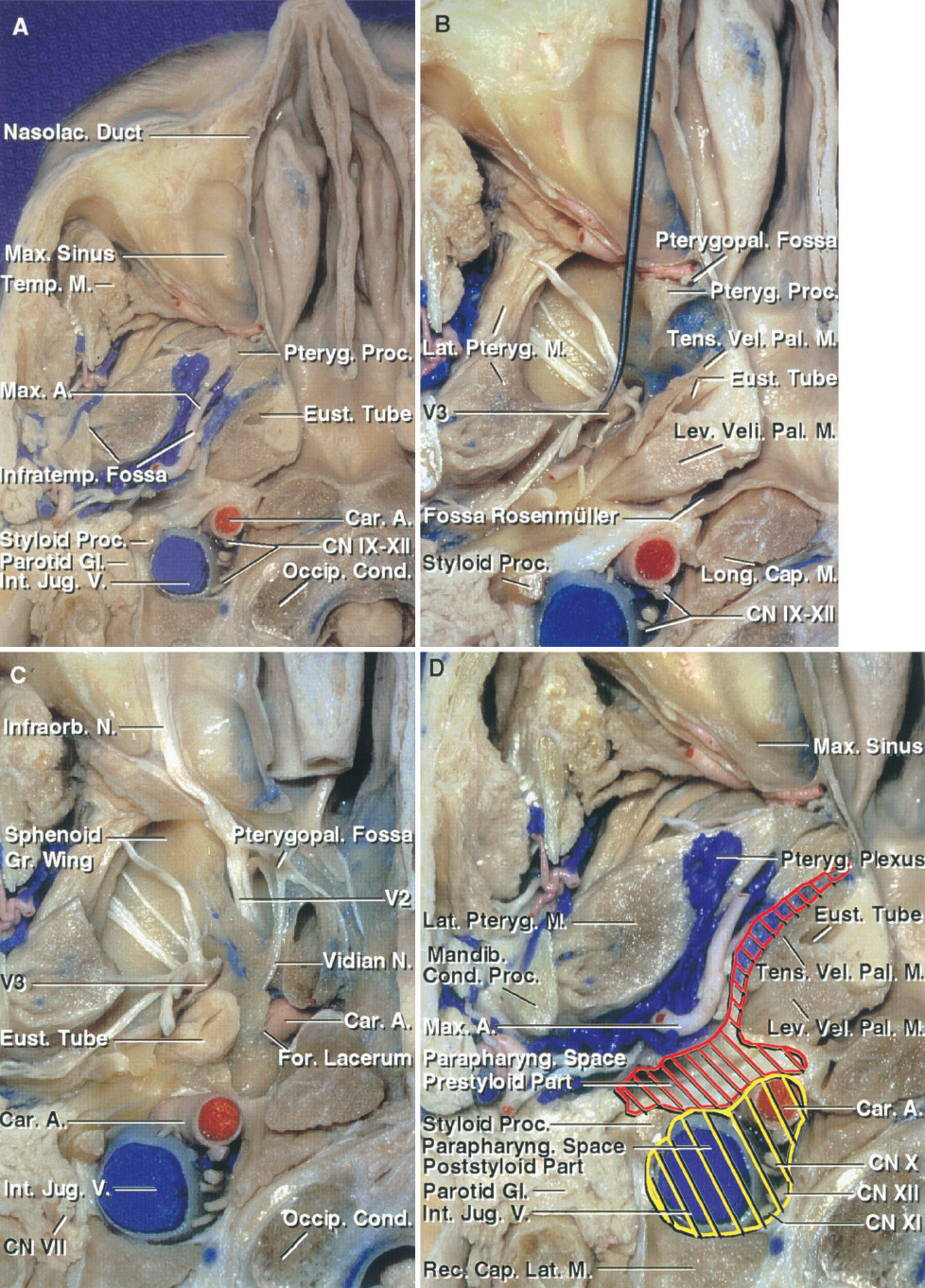 FIGURE 8.9. Inferior views of an axial section of the skull base. A, the infratemporal fossa is surrounded by the maxillary sinus anteriorly, the mandible laterally, the sphenoid pterygoid process anteromedially, and the parapharyngeal space posteromedially, and contains the mandibular nerve and maxillary artery and their branches, the medial and lateral pterygoid muscles, and the pterygoid venous plexus. B, part of the lateral pterygoid muscle has been removed to expose the branches of the trigeminal nerve coursing in the infratemporal fossa below the greater sphenoid wing. The pterygopalatine fossa is located between the posterior maxillary wall anteriorly, the sphenoid pterygoid process posteriorly, the nasal cavity medially, and the infratemporal fossa laterally. The pharyngeal recess (fossa of Rosenmuller) projects laterally from the posterolateral corner of the nasopharynx with its lateral apex facing the internal carotid artery laterally and the foramen lacerum above. The posterior nasopharyngeal wall is separated from the lower clivus and the upper cervical vertebra by the longus capitis, and the nasopharyngeal roof rests against the upper clivus and the posterior part of the sphenoid sinus floor. C, the sphenoid pterygoid process has been removed to expose the maxillary nerve passing through the foramen rotundum to enter the pterygopalatine fossa where it gives rise to the infraorbital nerve, which courses in the roof of the maxillary sinus. The maxillary nerve within the pterygopalatine fossa gives off communicating rami to the pterygopalatine ganglion. The vidian nerve, formed by the union of the deep petrosal nerve from the carotid sympathetic plexus and the greater petrosal nerve, courses forward through the vidian canal to join the pterygopalatine ganglion. The terminal part of the petrous carotid is exposed above the foramen lacerum. D, enlarged view with highlighting of the pre- (red) and poststyloid (yellow) compartments of the parapharyngeal space.