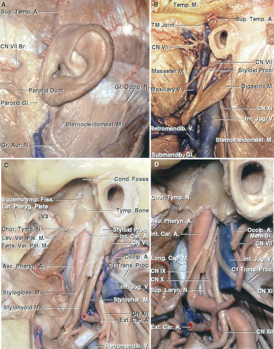 FIGURE 9.4. A–D. Stepwise dissection of the structures superficial to and surrounding the jugular foramen. A,the skin and scalp around the ear have been reflected to expose the area lateral to the jugular foramen. The sternocleidomastoid is exposed behind and the parotid gland in front of the ear. The greater occipital nerve and occipital artery reach the subcutaneous tissues by passing between the attachment of the trapezius and sternocleidomastoid muscles to the superior nuchal line. The external acoustic meatus is located a little forward of the deep site of the jugular bulb. B, removal of the superficial muscles and parotid gland exposes the facial nerve, temporalis and massetermuscles, posterior belly of the digastric, and the internal jugular vein.The sternocleidomastoid muscle has been reflected backward to expose the accessory nerve entering its deep surface. C, the mandibular ramus and condyle, medial and lateral pterygoid muscles, and posterior belly of the digastric have been removed to expose the styloid process, which is located lateral to the jugular foramen. Theinternal carotid artery ascends to enter the carotid canal in front of the jugular foramen. Both the jugular foramen and carotid canal are situated behind the tympanic part of the temporal bone, which forms the posterior wall of the condylar fossa. The tensor and levator vela palatini muscles are attached to the eustachian tube in the area belowthe horizontal segment of the petrous carotid. The infratemporal fossa is located below the greater wing of the sphenoid. The mandibular nerve passes through the foramen ovale to enter the upper part of the infratemporal fossa. Branches of the ascending pharyngeal artery pass through the jugular foramen to supply the surrounding dura. The hypoglossal nerve passes forward across the external and internal carotid artery. D, the styloid process has been removed to expose the glossopharyngeal, vagus, accessory, and hypoglossal nerves descending between the i