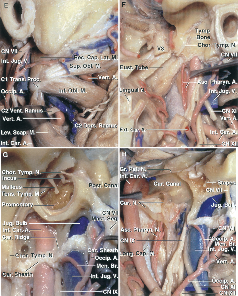 FIGURE 9.4. E–H. E, the superior and inferior oblique have been exposed by reflecting the more superficial muscles. The C1 transverse process and rectus capitis lateralis rest against the posterior surface of the internal jugular vein. The rectus capitis lateralis attaches to the jugular process of the occipital bone at the posterior margin of the jugular foramen. Retracting the levator scapulae exposes the segment of the vertebral artery ascending through the C2 transverse foramen in front of the ventral ramus of the C2 nerve root. The vertebral artery, as it passes medially along the upper surface of the posterior arch of the atlas, is situated in the floor of the suboccipital triangle located between the superior and inferior oblique and rectus capitis posterior major. F, the internal carotid artery has been displaced posteriorly to expose the branches of the ascending pharyngeal, which pass through the foramen lacerum, jugular foramen, and hypoglossal canal to supply the surrounding dura. The chorda tympani exits the skull in the medial part of the condylar fossa by first passing through the petrotympanic and then along the squamotympanic sutures. G, the tympanic bone forming the lower and anterior margin of the external meatus has been removed, but the tympanic sulcus to which the tympanic membrane attaches has been preserved. The surface of the temporal and occipital bones surrounding the jugular foramen and carotid canal have an irregular surface that serves as the attachment of the upper end of the carotid sheath. The mastoid segment of the facial nerve and the stylomastoid foramen are situated lateral to the jugular bulb. The chorda tympani arises from the mastoid segment of the facial nerve and courses along the deep side of the tympanic membrane crossing the neck of the malleus. It exits the skull by passing through the petrotympanic and squamotympanic sutures and joins the lingual branch of the mandibular nerve distally. The carotid ridge separates the c