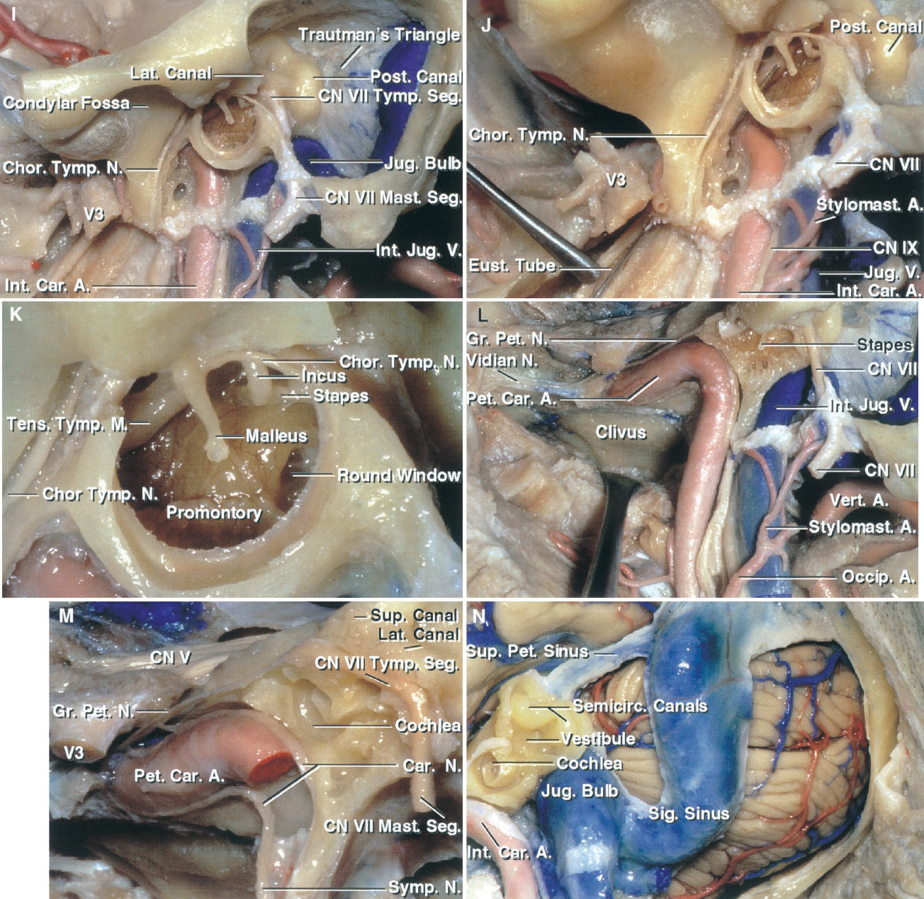 FIGURE 9.4. I–N. I, lateral view of mastoid and tympanic cavity before removing the tympanic ring. The tympanic segment of the facial nerve passes below the lateral semicircular canal and turns downward as the mastoid segment to exit the stylomastoid foramen. The stylomastoid foramen and the mastoid segment are located lateral to the jugular bulb. The semicircular canals are located above the jugular bulb. J, a probe has been placed in the eustachian tube, which passes downward, forward, and medially from the tympanic cavity and across the front of the petrous carotid. The third trigeminal division passes through the foramen ovale on the lateral side of the eustachian tube. K, enlarged view of the tympanic ring with the tympanic membrane removed. The tensor tympany muscle passes backward above the eustachian tube and gives rise to a tendon that turns sharply lateral around the trochleiform process to attach to the malleus. The chorda tympani crosses the inner surface of the tympanic membrane and neck of the malleus. The round window opens into the vestibule. The stapes sit in the oval window. The promontory is located lateral to the basal turn of the cochlea. L, the floor of the middle fossa and the tympanic sulcus have been removed to expose the jugular bulb and petrous carotid. The greater petrosal nerve courses along the floor of the middle fossa on the upper surface of the petrous carotid. The deep petrosal nerve arises from the sympathetic bundles on the internal carotid artery. The deep and greater petrosal nerves join to form the vidian nerve, which passes forward through the vidian canal to join the maxillary nerve and pterygopalatine ganglion in the pterygopalatine fossa. The pharyngobasilar fascia and upper part of the longus capitis have been reflected downward to expose the lower margin of the clivus. M, the jugular bulb has been removed from the jugular fossa located below the vestibule and semicircular canals. The vertical segment of the petrous caroti