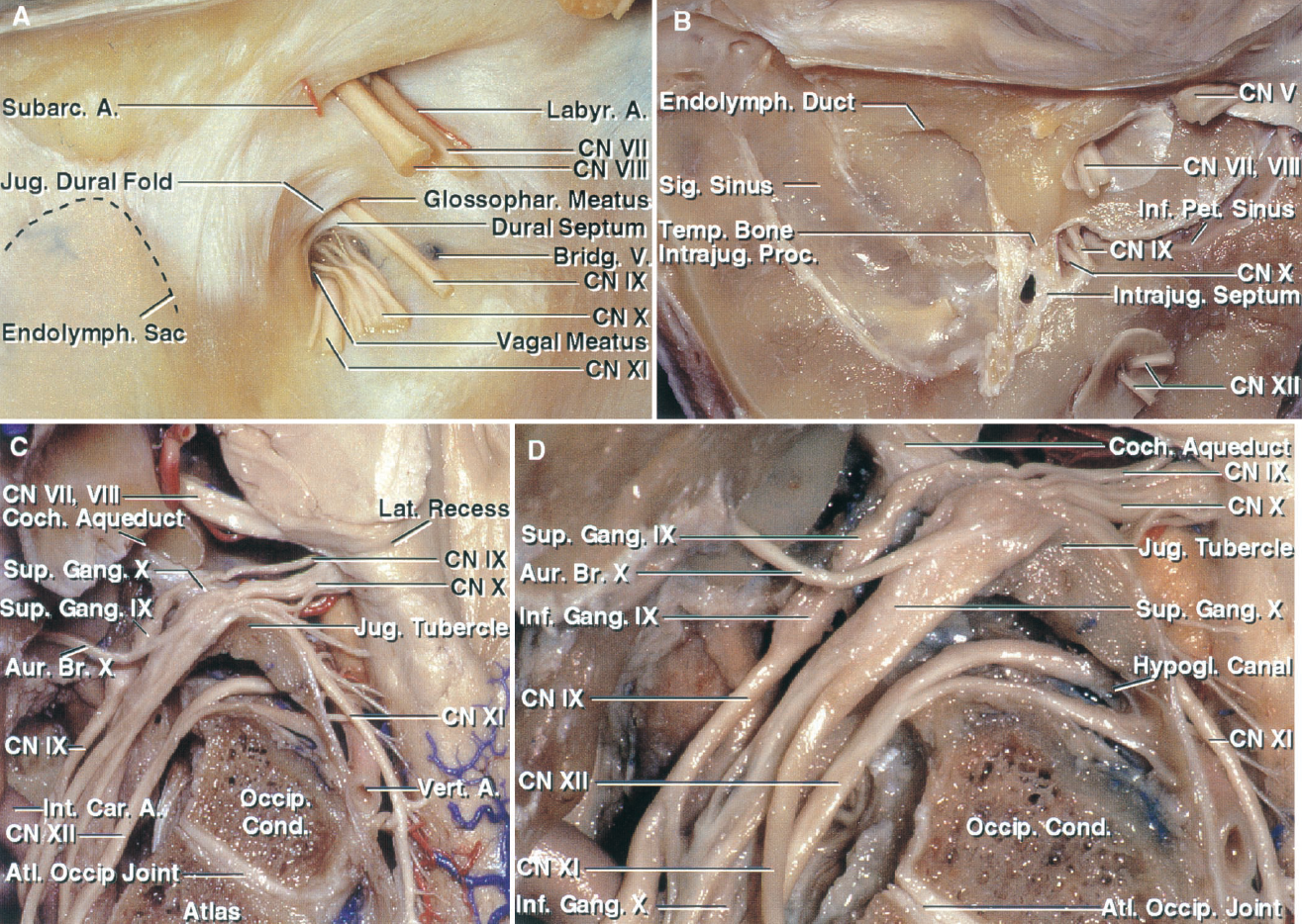 FIGURE 9.5. A, posterior view of the intracranial aspect of the left jugular foramen. The glossopharyngeal, vagus, and accessory nerves pierce the dural roof of the jugular foramen. The glossopharyngeal nerve is separated from the vagus nerve by a narrow dural septum. The jugular dural fold projects downward and medially from the lateral and upper margin of the jugular foramen over the site at which the nerves enter the dura roof of the foramen. The facial and vestibulocochlear nerves and labyrinthine artery enter the internal acoustic meatus. The subarcuate branch of the anteroinferior cerebellar artery enters the subarcuate fossa. The endolymphatic sac is located between the dural layers lateral to the jugular foramen. A bridging vein from the medulla joins the inferior petrosal sinus on the medial side of the jugular bulb. B, the dura has been removed from the posterior surface of the temporal bone. The intrajugular processes of the temporal and occipital bones, which are connected by a fibrous bridge, the intrajugular septum, separates the sigmoid and petrosal parts of the foramen. The glossopharyngeal, vagus, and accessory nerves enter the intrajugular part of the foramen by penetrating the dura on the medial side of the intrajugular process of the temporal bone. C, the glossopharyngeal nerve enters the jugular foramen below the cochlear aqueduct. The vagus nerve enters the jugular foramen behind the glossopharyngeal nerve. The auricular branch of the vagus nerve (Arnold's nerve) arises at the level of the superior ganglion and passes around the anterior wall of the jugular bulb. The accessory nerve is formed by multiple rootlets, which arise from the medulla and spinal cord. The accessory rootlets collect together to form a bundle that blends into the lower margin of the vagus nerve at the level of the jugular foramen. The lower vagal and accessory roots pass across the surface of the jugular tubercle. D, enlarged view. The glossopharyngeal nerve expands at th