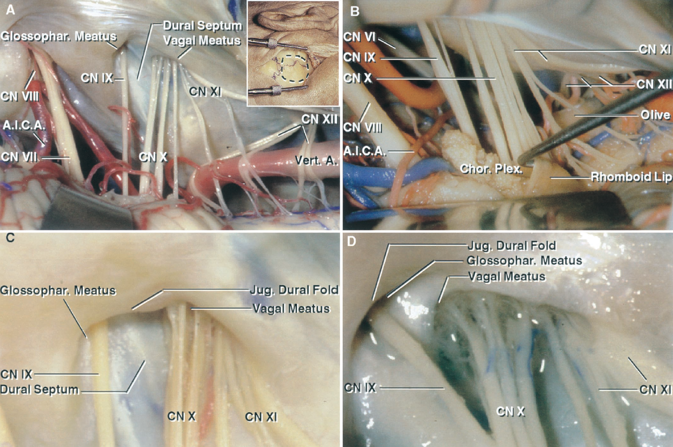 FIGURE 9.6. Retrosigmoid approach to jugular foramen. A, the detail shows the site of the vertical scalp incision and right retrosigmoid craniotomy. The cerebellum has been elevated to expose the nerves in the right cerebellopontine angle. The glossopharyngeal and vagal nerves are separated by the dural septum at the level of the dural roof of the jugular foramen. The glossopharyngeal nerve enters the glossopharyngeal meatus and the vagus nerve enters the vagal meatus with the branches of the accessory nerve. Both meatus are very shallow compared with the internal acoustic meatus. The superior and lateral margins of both meatus project downward and medially over the nerves entering the meatus. The vertebral artery displaces the hypoglossal rootlets of Cranial Nerve XII posteriorly so that they intermingle with the rootlets of the accessory nerve. B, another specimen showing the relationship of the rhomboid lip and choroid plexus protruding from the foramen of Luschka to the glossopharyngeal and vagus nerves. The choroid plexus protrudes laterally behind the glossopharyngeal nerves. The rhomboid lip is a thin layer of neural tissue that forms the ventral margin of the foramen of Luschka at the outer end of the lateral recess. C and D, enlarged view of two jugular foramina. The glossopharyngeal and vagus nerves are consistently separated by a dural septum at the level of the roof over the jugular foramen. The jugular dural fold projects downward and medially over the lateral edge of the glossopharyngeal and vagal meatus and over the site at which the nerves penetrate the dura. A., artery; A.I.C.A., anteroinferior cerebellar artery; Chor., choroid; CN, cranial nerve; Glossophar., glossopharyngeal; Jug., jugular; Plex., plexus; Vert., vertebral.