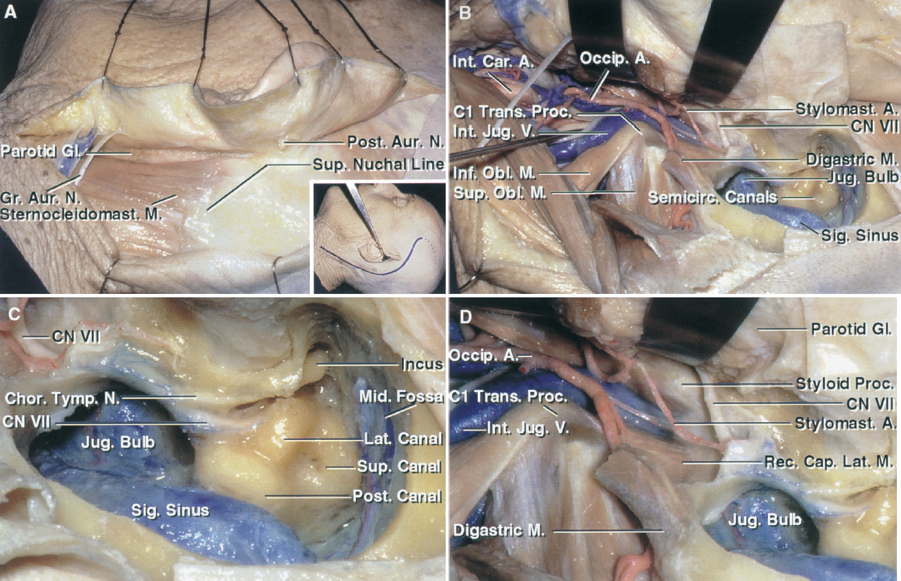 FIGURE 9.7. A–D. Postauricular exposure of the jugular foramen. A, the detail shows the site of the scalp incision. The C-shaped retroauricular incision provides access for the mastoidectomy, neck dissection, and parotid gland displacement. The scalp flap has been reflected forward to expose the sternocleidomastoid and the posterior part of the parotid gland. B, the more superficial muscles and the posterior belly of the digastric have been reflected to expose the internal jugular vein and the attachment of the superior and inferior oblique to the transverse process of C1. A mastoidectomy has been completed to expose the facial nerve, sigmoid sinus, and capsule of the semicircular canals. C, enlarged view of the mastoidectomy. The jugular bulb is exposed below the semicircular canals. The chorda tympani arises from the mastoid segment of the facial nerve and passes upward and forward. The tympanic segment of the facial nerve courses below the lateral canal. D, enlarged view of the caudal part of the exposure shown in C. The facial nerve and styloid process cover the extracranial orifice of the jugular foramen. The facial nerve crosses the lateral surface of the styloid process. The stylomastoid artery arises from the postauricular artery. The rectus capitis lateralis attaches to the jugular process of the occipital bone behind the jugular foramen. A., artery; Aur., auricular; Cap., capitis; Car., carotid; Chor. Tymp., chorda tympani; CN, cranial nerve; Coch., cochlear; Gl., gland; Gr., greater; Inf., inferior; Int., internal; Intrajug., intrajugular; Jug., jugular; Laryn., laryngeal; Lat., lateral, lateralis; M., muscle; Med., medial; Mid., middle; N., nerve; Obl., oblique; Occip., occipital; Pet., petrosal, petrous; Post., posterior; Proc., process; Rec., rectus; Semicirc., semicircular; Sig., sigmoid; Sternocleidomast., sternocleidomastoid; Stylomast., stylomastoid; Sup., superior; Symp., sympathetic; Tr., trunk; Trans., transverse; V., vein.