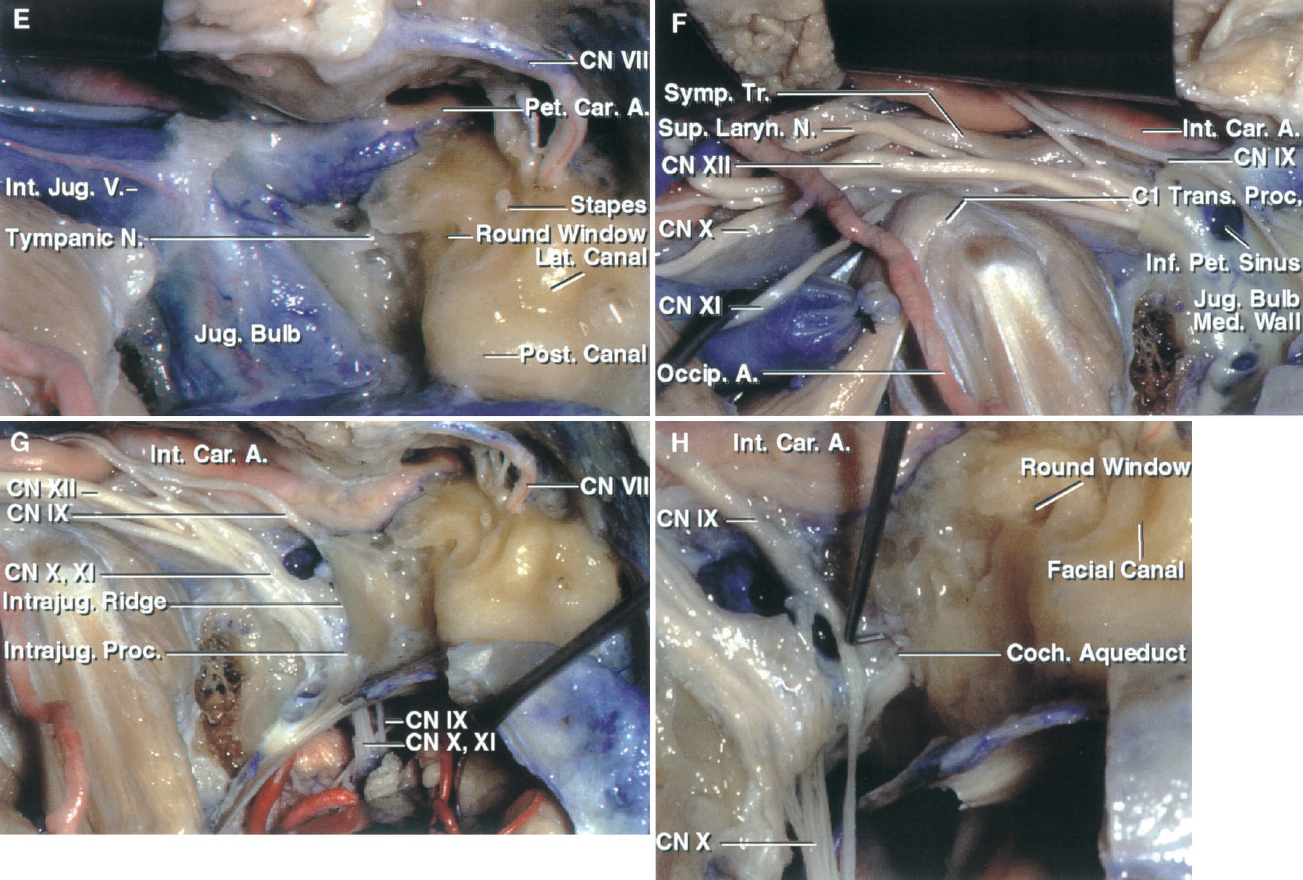 FIGURE 9.7. E–H. E, the external auditory canal has been transected and the middle ear structures have been removed, except the stapes, which has been left in the oval window. The lateral edge of the jugular foramen has been exposed by completing the mastoidectomy, transposing the facial nerve anteriorly, and fracturing the styloid process across its base and reflecting it caudally. The rectus capitis lateralis has been detached from the jugular process of the occipital bone. The petrous carotid is surrounded in the carotid canal by a venous plexus. F, a segment of the sigmoid sinus, jugular bulb, and internal jugular vein have been removed. The lateral wall of the jugular bulb has been removed while preserving the medial wall and exposing the opening of the inferior petrosal sinus into the jugular bulb. Removing the venous wall exposes the glossopharyngeal, vagus, accessory, and hypoglossal nerves, which are hidden deep to the vein. The main inflow from the petrosal confluens is directed between the glossopharyngeal and vagus nerves. G, the medial venous wall of the jugular bulb has been removed. The intrajugular ridge extends forward from the intrajugular process, which divides the jugular foramen between the sigmoid and petrosal parts. The glossopharyngeal, vagus, and accessory nerves enter the dura on the medial side of the intrajugular process, but only the glossopharyngeal nerve courses through the foramen entirely on the medial side of the intrajugular ridge. The vagus nerve also enters the dura on the medial side of the intrajugular process, but does not course along the medial side of the intrajugular ridge. H, the intrajugular process and ridge have been removed to expose the passage of the glossopharyngeal, vagus, and accessory nerves through the jugular foramen. The tip of a right-angle probe identifies the junction of the cochlear aqueduct with the pyramidal fossa, just above where the glossopharyngeal nerve penetrates the dura.