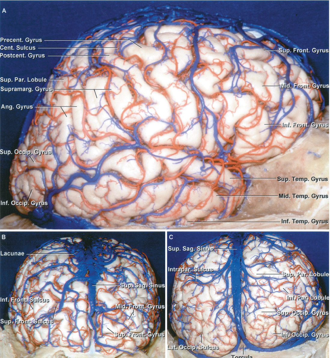 Figure 1.1. Lateral view of the right cerebral hemisphere. A, the brain, when exposed carefully and accurately, is a remarkably beautiful structure. The arteries, veins, gyri, and sulci are organized in a complex array. The frontal convexity is made up of the superior, middle, and inferior frontal and precentral gyri. The parietal convexity is composed of the postcentral gyrus and the superior and inferior parietal lobules. The inferior parietal lobule is made up of the supramarginal and angular gyrus. The temporal convexity is composed of the superior, middle, and inferior temporal gyri. The occipital convexity is formed by the superior and inferior occipital gyri. B, anterior view. The superior and middle frontal gyri are separated by the superior frontal sulcus. The inferior frontal sulcus courses between the middle and inferior frontal gyri. The veins from the anterior part of the hemisphere are directed backward to reach the superior sagittal sinus. A large venous lacunae extends over the superior margin of the frontal lobe adjacent to the superior sagittal sinus. C, posterior view of the hemisphere. The lateral occipital sulcus divides the lateral aspect of the occipital lobe into the superior and inferior occipital gyri. The veins from the occipital convexity are directed forward to enter the superiorsagittal sinus. The posterior part of the parietal lobe is divided by the intraparietal sulcus into the superior and inferior parietal lobules. Ang., angular; Cent., central; Front., frontal; Inf., inferior; Intrapar., intraparietal; Lat., lateral; Mid., middle; Occip., occipital; Par., parietal; Postcent., postcentral; Precent., precentral; Sag., sagittal; Sup., superior; Supramarg., supramarginal; Temp., temporal.