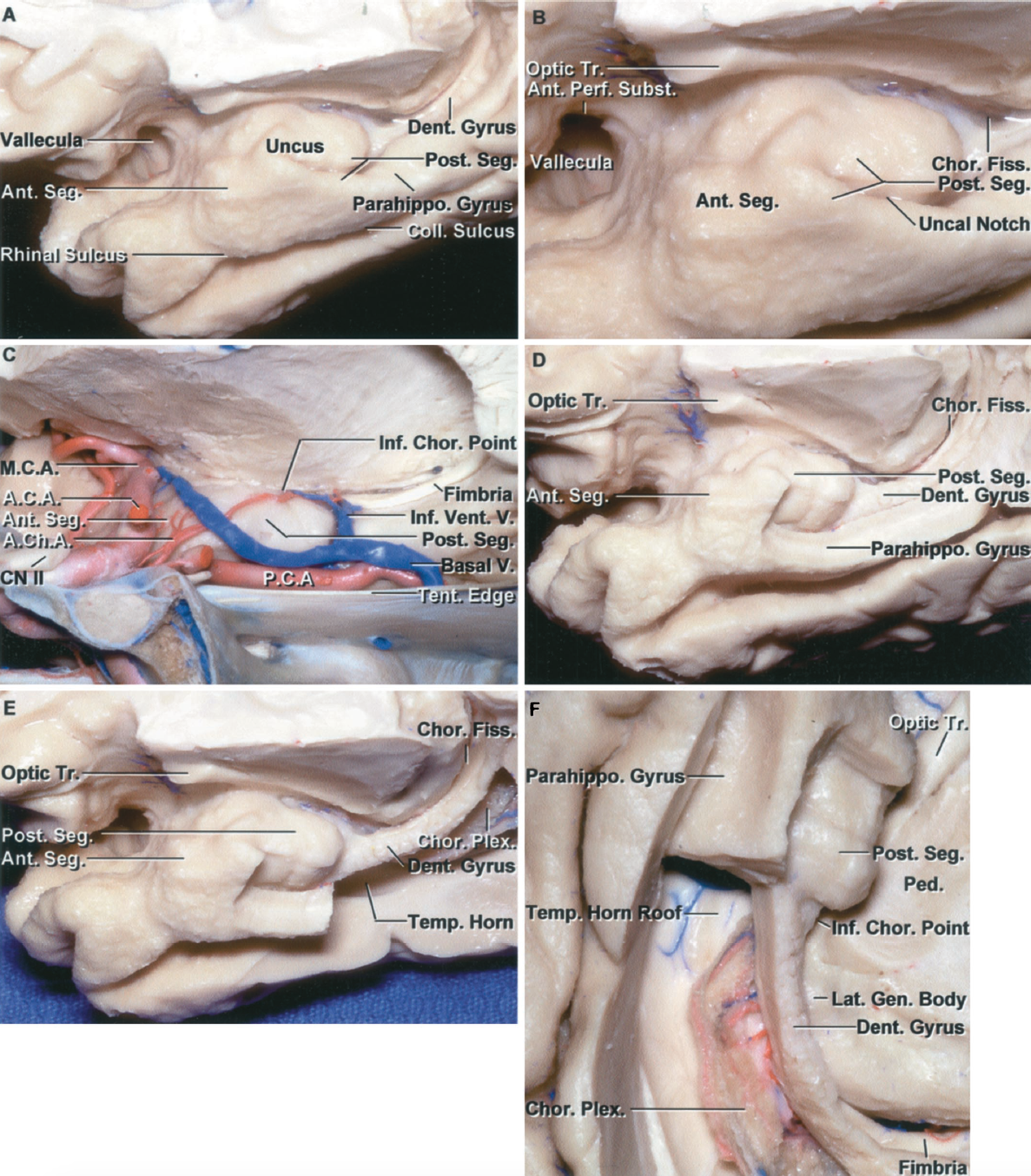 Figure 1.10. Medial surface of the temporal lobe and uncus. A, the uncus, a medial projection at the anterior end of the parahippocampal gyrus, has an anterior and posterior segment. The sylvian vallecula is the site where the middle cerebral artery exits the carotid cistern to enter the sylvian cistern. The collateral sulcus extends along the lateral margin of the parahippocampal gyrus, and the rhinal sulcus extends along the lateral edge of the uncus. The rhinal and collateral sulci are frequently not continuous, although they are in this case. B, enlarged view. The posterior segment of the uncus is divided by the uncal notch into an upper and lower part. The lower part is formed by the parahippocampal gyrus and the upper part is formed predominantly by the hippocampal head. The dentate gyrus, at its anterior margin, blends into the upper part of the posterior segment. C, medial view of the uncus directed across the sella and tentorial edge. The carotid artery and middle cerebral artery face the anterior segment of the uncus. The posterior cerebral artery courses along the medial side of the posterior segment. The anterior choroidal artery ascends as it passes backward across the anterior segment to reach the upper part of the posterior segment. The anterior choroidal artery enters, and the inferior ventricular vein exits, the choroidal fissure by passing through the inferior choroidal point located just behind the head of the hippocampus and the posterior uncal segment. The inferior ventricular vein drains the roof of the temporal horn and empties in the basal vein. D, the medial part of the parahippocampal gyrus and the lower part of the posterior uncal segment have been removed to expose the dentate gyrus and the choroidal fissure. The beaded dentate gyrus blends into the posterior edge of the upper part of the posterior uncal segment and the medial side of the hippocampal head. E, additional parahippocampal gyrus has been removed while preserving the dentate gyrus to expose the choroid plexus in the temporal horn. The amygdala, partially enclosed in the anterior segment, forms the anterior wall of the temporal horn. F, inferior view of E. The part of the parahippocampal gyrus, lateral to the dentate gyrus, has been removed to expose the roof of the temporal horn, which is formed by the tapetum, the thin layer of fibers from the corpus callosum that separate the optic radiation from the wall of the temporal horn. The dentate gyrus and fimbria have been preserved. The choroid plexus is attached along the choroidal fissure located between the fimbria and lower margin of the thalamus. The inferior choroidal point at the lower end of the choroidal fissure is located behind the posterior uncal segment and the hippocampal head. The dentate gyrus and fimbria extend along the lateral edge of the lateral geniculate body. A.C.A., anterior cerebral artery; A.Ch.A., anterior choroidal artery; Ant., anterior; Chor., choroid, choroidal; CN, cranial nerve; Coll., collateral; Dent., dentate; Fiss., fissure; Gen., geniculate; Inf., inferior; Lat., lateral; M.C.A., medial cerebral artery; P.C.A., posterior cerebral artery; Parahippo., parahippocampal; Ped., peduncle; Perf., perforated; Plex., plexus; Post., posterior; Seg., segment; Subst., substance; Temp., temporal; Tent., tentorial; Tr., tract; V., vein; Vent., ventricular.