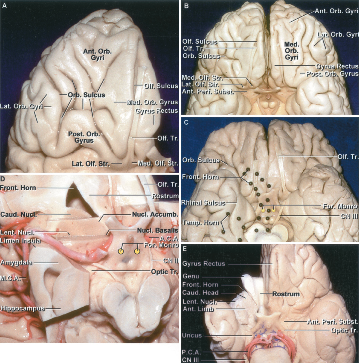 Figure 1.11. Orbital surface of the frontal lobe. A, the olfactory tract extends along the olfactory sulcus on the lateral side of the gyrus rectus and divides at the edge of the anterior perforated substance into the medial and lateral olfactory striae. The orbital surface lateral to the gyrus rectus is divided by an H-shaped sulcus into anterior, posterior, medial, and lateral orbital gyri. B, another cerebrum. The olfactory sulci separate the gyrus rectus medially from the orbital gyri laterally. The orbital surface lateral to the gyrus rectus is divided by a number of sulci that tend to form an H-shaped configuration and divide the area into anterior, posterior, medial, and lateral orbital gyri. The most lateral of the lateral orbital gyri is continuous with the pars orbitalis of the inferior frontal gyrus. C, orbital surfaces of another hemisphere. The location of the frontal and temporal horns deep within the hemisphere has been outlined using colored black pins. The frontal horn extends forward in the frontal lobe to approximately the level of the transverse part of the H-shaped orbital sulcus. The deep site of the foramen of Monro, shown with yellow pins, in relationship to the basal surface is anterior to the mamillary bodies. D, the lower part of the right frontal lobe has been removed to expose the frontal horn. The caudate nucleus forms the lateral wall of the frontal horn and the rostrum of the corpus callosum forms the floor. At a more superior axial level, the caudate and lentiform nuclei are separated by the anterior limb of the internal capsule, but at this level below the anterior limb of the internal capsule, the nuclei form a solid, unbroken mass of gray matter located above the anterior perforated substance and adjoining part of the orbital surface. In addition, the lentiform and caudate nuclei blend medially without a clear border into the nucleus basalis and nucleus accumbens. The nucleus basalis is located in the medial part of this gray mass below the anterior commissure, and the nucleus accumbens is situated in front of the nucleus basalis. The amygdala is located below and blends into the lentiform nucleus at its upper border. E, fiber dissection of the right hemisphere showing the relationship of the genu and rostrum of the corpus callosum to the orbital surface. The anterior margin of the genu of the corpus callosum is located above the midportion of the basal surface. The rostrum of the corpus callosum forms the floor of the frontal horn. The genu, along with its large fiber bundle, the forceps minor, forms the anterior wall of the frontal horn. The caudate nucleus forms the lateral wall of the frontal horn. The basal side of the caudate nucleus and the lentiform nucleus, formed by the putamen and globus pallidus, blend together in the area below the anterior limb of the frontal capsule to form a globular mass of gray matter that extends almost unbroken from the lower part of the frontal horn to the insula. At a more superior level, the anterior limb of the internal capsule cuts into the interval between the caudate and lentiform nuclei dividing them into separate nuclei. A.C.A., anterior cerebral artery; Accumb., accumbens; Ant., anterior; Caud., caudate; CN, cranial nerve; For., foramen; Front., frontal; Lat., lateral; Lent., lentiform; M.C.A., medial cerebral artery; Med., medial; Nucl., nucleus; Olf., olfactory; Orb., orbital; P.C.A., posterior cerebral artery; Perf., perforated; Post., posterior; Str., striae; Subst., substance; Temp., temporal; Tr., tract.