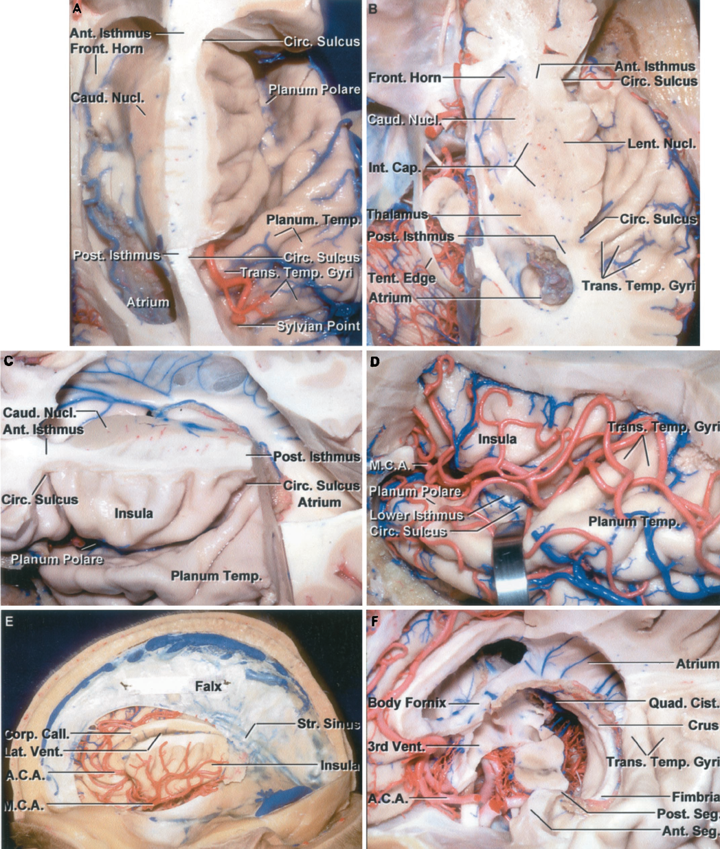 Figure 1.12. Central core of the hemisphere. A, superior view. The central core is the portion located between the insular surface laterally and the lateral and third ventricles medially. We refer to the narrow strip of white matter deep to the circular sulcus and connecting the central core to the remaining hemisphere as the cerebral isthmus. The isthmus, at the margin of the core, conveys all the fibers related to all of the motor and sensory pathways, including those that form the internal capsule and optic radiations. The anterior margin of the circular sulcus is separated from the frontal horn by the relatively thin anterior part of the isthmus, and the posterior margin of the circular sulcus is separated from the atrium by the narrow posterior part of the isthmus. The upper margin of the isthmus separating the upper margin of the circular sulcus and the lateral ventricle is somewhat thicker than the anterior or posterior margin of the isthmus. The transverse temporal gyri, the most anterior of which is Heschl's gyrus, are located lateral to the posterior margin of the insula on the planum temporale. An area without gyri anterior to the planum temporale on the anterior part of the upper surface of the temporal lobe, called the planum polare, faces the anterior part of the lateral surface of the insula. The transverse temporal gyri radiate forward and laterally from the posterior isthmus located lateral to the atrium. The sylvian point, the site at which the last insular branch of the middle cerebral artery turns laterally from the insula, is located lateral to the posterior isthmus and the posterior part of the circular sulcus. B, superior view of the central core and the anterior and posterior parts of the cerebral isthmus. The transverse temporal gyri seem to radiate laterally and forward from an apex situated lateral to the atrium, the posterior part of the circular sulcus, and the posterior isthmus. The section extends through the anterior and posterior limb and genu of the internal capsule, thalamus, and lentiform and caudate nuclei. The thalamus is located directly above the midbrain in the center of the tentorial incisura. C, superolateral view of the insula, circular sulcus, and the anterior and posterior isthmi. The circular sulcus extends completely around the margin of the insula and is located superficial to the white matter forming the cerebral isthmus. The isthmus is the thinnest area between the insular and ventricular surfaces. D, the upper surface of the left temporal lobe has been retracted to expose the lower part of the circular sulcus and isthmus located deep to the circular sulcus. An incision extending through the thin isthmus at the lower margin of the circular sulcus will expose the temporal horn, but will also cut across the optic and auditory radiations and the sublenticular part of the internal capsule, unless only a short segment of the anterior part of the lower isthmus is opened. E, lateral view of the central core. The cerebral hemisphere has been removed by dividing the isthmus, located deep to the circular sulcus and extending around the margin of the insula. The corpus callosum and fibers crossing the midline were also divided. Middle cerebral branches course along the insular surface. The lower margin of the circular sulcus is located deep to the superior temporal sulcus. F, all of the central core has been removed. It includes the caudate and lentiform nuclei, thalamus, and some of the corona radiata and internal capsule. The medial part of the core has been separated from the ventricular surface by opening the choroidal fissure, the natural cleft and cleavage plane between the thalamus and fornix. The body, crus, and fimbria of the fornix form the outer border of the choroidal fissure. The transverse temporal gyri, forming the planum temporale, radiate forward from the posterior edge of the circular sulcus located lateral to the atrium. The quadrigeminal cistern is located medial to the crus of the fornix. A.C.A., anterior cerebral artery; Ant., anterior; Call., callosum; Cap., capsule; Caud., caudate; Circ., circular; Cist., cistern; Corp., corpus; Front., frontal; Int., internal; Lat., lateral; Lent., lentiform; M.C.A., medial cerebral artery; Nucl., nucleus; Post., posterior; Quad., quadrigeminal; Seg., segment; Str., straight; Temp., temporal, temporale; Tent., tentorial; Trans., transverse; Vent., ventricle.