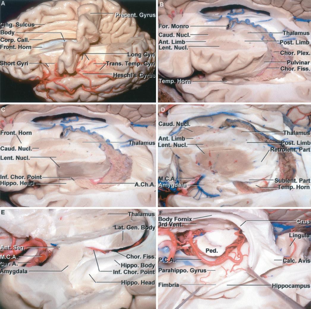 Figure 1.13 A-F. Stepwise dissection of the central core of the hemisphere. A, superior view. The central core is the part of the cerebrum located between the insula and the third and lateral ventricles. The upper part of the left hemisphere, except the precentral gyrus, has been removed to expose the frontal horn and body of the ventricle. The precentral gyrus is located lateral to the posterior part of the body of the ventricle and lateral to the splenium of the corpus callosum. The postcentral gyrus, which has been removed, faces the most anterior of the transverse temporal gyri, called Heschl's gyrus. The short insular gyri are exposed anterior to and the long gyri behind the precentral gyrus. B, the axial section extending through the central core crosses the anterior and posterior limb and genu of the internal capsule, the thalamus, and the lentiform and caudate nuclei at the level of the foramen of Monro. The lateral wall of the atrium and the roof of the temporal horn have been removed by dividing the white matter along the circular sulcus of the insula. C, the posterior part of the lateral surface of the insula has been removed to expose the lateral surface of the lentiform nucleus. The choroid plexus is attached along the choroidal fissure that extends from the foramen of Monro to the inferior choroidal point located just behind the head of the hippocampus. D, the anterior part of the insular cortex has been removed to expose the lentiform nucleus in the area above and behind the sylvian fissure, and above the anterior perforated substance and temporal horn. The middle cerebral artery, in the stem of the sylvian fissure, passes below the anterior part of the caudate and lentiform nuclei. The sublenticular and retrolenticular parts of the internal capsule, including the optic and auditory radiations, pass below and behind the lentiform nucleus. The anterior limb of the internal capsule is located between the caudate and lentiform nuclei, and the posterior limb is positioned between the lentiform nucleus and thalamus. E, enlarged view of the lower margin of the thalamus and upper part of the uncus. The anterior segment of the uncus contains the amygdala and faces the carotid and middle cerebral arteries. The posterior segment of the uncus contains the head of the hippocampus and is located anterior to the lower end of the choroidal fissure. The lateral geniculate body is located just above the choroidal fissure and body of the hippocampus. The choroidal fissure, along which the choroid plexus is attached, is located between the fimbria and the thalamus. The inferior choroidal point, the lower end of the choroidal fissure, is located behind the hippocampal head. F, the thalamus has been removed and the fimbria of the fornix retracted laterally to expose the parahippocampal gyrus medial to the fimbria. The posterior cerebral artery courses through the crural and ambient cisterns on the medial side of the parahippocampal gyrus. The upper lip of the calcarine sulcus, formed by the cuneus, has been removed to expose the lower lip formed by the lingula. The deep end of the calcarine sulcus forms a prominence, the calcar avis, in the medial wall of the atrium.