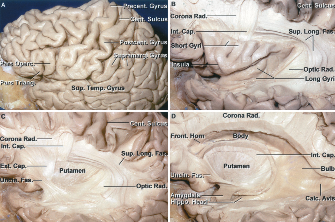 Figure 1.15 A-D. Stepwise fiber dissection. A, left cerebral hemisphere. The pre- and postcentral gyri adjoin the central sulcus. The precentral gyrus is located behind the pars opercularis and the postcentral gyrus is located in front of the supramarginal gyrus. B, the frontal, parietal, and temporal operculi have been removed to expose the insula. The corona radiata and some of the fibers joining the internal capsule are exposed above the insula. The insular surface is composed of long and short gyri. The superior longitudinal fasciculus courses around the outer margin of the insula and lentiform nucleus. The retrolenticular part of the optic radiations are exposed behind the insula and deep to the superior longitudinal fasciculus. C, the claustrum and the posterior part of the external capsule have been removed to expose the putamen. The anterior part of the external capsule has been preserved. The uncinate fasciculus interconnects the frontal and temporal lobes. The retrolenticular part of the optic radiations is exposed behind the lentiform nucleus. The superior longitudinal fasciculus courses superficial to the optic radiations and deep to the extreme and external capsules. D, the frontal horn, body, atrium, and temporal horn of the lateral ventricle have been exposed. The fibers of the external capsule superficial to the putamen have been removed. The internal capsule courses medial to the lentiform nucleus, the outer segment of which is formed by the putamen. The lower part of the uncinate fasciculus has been removed to expose amygdala and the head of the hippocampus. The amygdala forms the anterior wall of the temporal horn. The calcar avis, overlying the deep end of the calcarine sulcus, and the bulb of the corpus callosum, overlying the fibers of the forceps major, are exposed in the medial wall of the atrium.