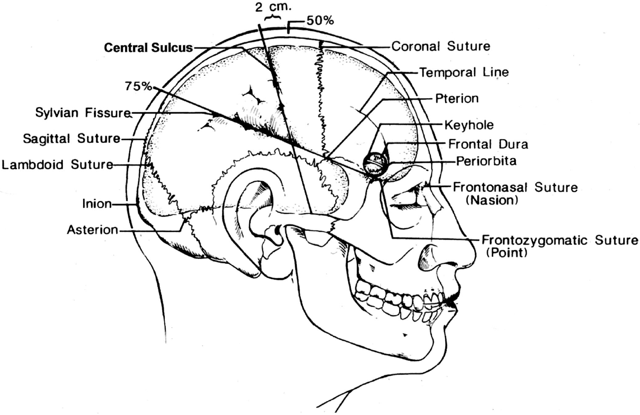 Figure 1.18. Sites commonly marked on the scalp before applying the drapes include the coronal, sagittal, and lambdoid sutures; the central sulcus and sylvian fissures; and the pterion, inion, asterion, and keyhole. Approximating the site of the sylvian fissure and central sulcus on the scalp begins by noting the position of the nasion, inion, and frontozygomatic point. The nasion is located in the midline at the junction of the nasal and frontal bones. The inion is the site of a bony prominence that overlies the torcular herophili. The frontozygomatic point is located on the orbital rim 2.5 cm above the level where the upper edge of the zygomatic arch joins the orbital rim and just below the junction of the lateral and superior margins of the orbital rim. The next steps are to construct a line along the sagittal suture and, using a flexible measuring tape, to determine the distance along this line from the nasion to inion and mark the midpoint and three-quarter points (50% and 75% points). The sylvian fissure is located along a line that extends backward from the frontozygomatic point across the lateral surface of the head to the three quarter point. The pterion, the site on the temple approximating the lateral end of the sphenoid ridge, is located 3 cm behind the frontozygomatic point on the sylvian fissure line. The central sulcus is located by identifying the upper and lower rolandic points. The upper rolandic point is located 2 cm behind the midpoint (50% plus 2 cm point) on the nasion-to-inion midsagittal line. The lower rolandic point is located where a line extending from the midpoint of the upper margin of the zygomatic arch to the upper rolandic point crosses the line defining the sylvian fissure. A line connecting the upper and lower rolandic points approximates the central sulcus. The lower rolandic point is located approximately 2.5 cm behind the pterion on the sylvian fissure line. Another important point is the keyhole, the site of a burr hole, which if properly placed, has the frontal dura in the depths of its upper half and the periorbita in its lower half. It is approximately 3 cm anterior to the pterion, just above the lateral end of the superior orbital rim and under the most anterior point of attachment of the temporalis muscle and fascia to the temporal line.