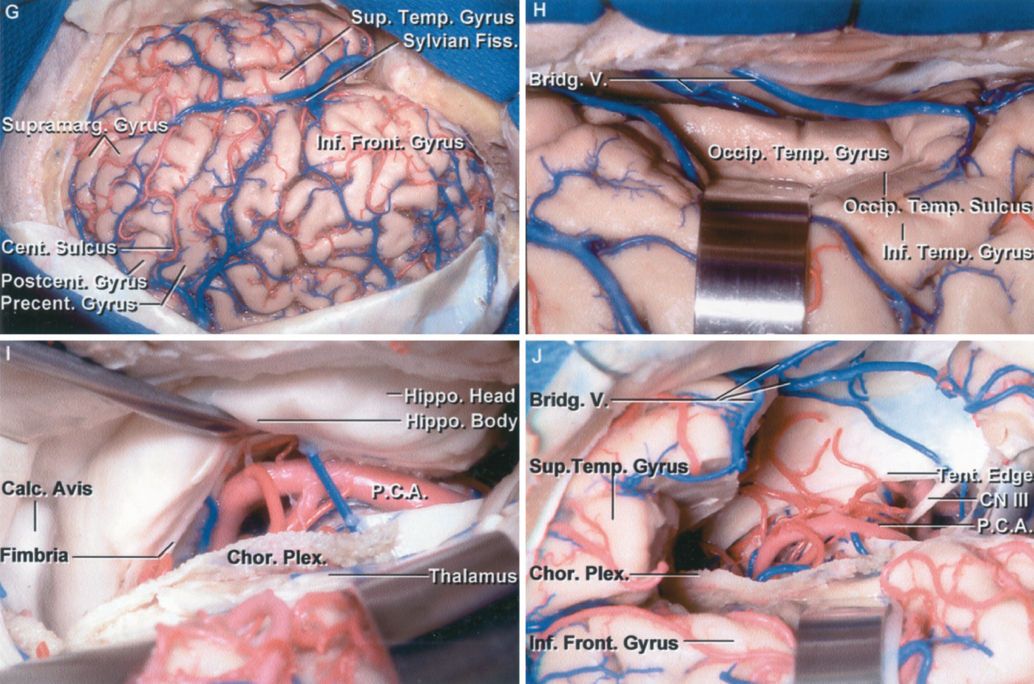 Figure 1.19 G-J G, exposure for left temporal lobectomy. The exposure includes the frontal and temporal lobe, as might be used for extensive cortical recording and mapping. The exposure is greater than normally used for a standard temporal lobectomy. H, an approach that preserves more of the neocortical surface is to open through a sulcus like the occipitotemporal sulcus located between the inferior temporal and occipitotemporal gyri. I, the left temporal horn and hippocampal body and head have been exposed. The choroidal fissure has been opened by dividing the tenia fimbria that attaches the choroid plexus to the fimbria on the surface of the hippocampus. The choroid plexus remains attached to the thalamus. J, a temporal lobectomy has been completed. The third nerve, posterior cerebral artery, and tentorial edge are in the medial part of the exposure. A large bridging vein passes from the sylvian fissure below the temporal lobe to empty into a tentorial sinus. After disconnecting the hippocampus medially, the resection is extended across the head of the hippocampus behind the amygdala. A., artery; A.Ch.A., anterior choroidal artery; Ant., anterior; Car., carotid; Cist., cistern; Chor., choroid, choroidal; CN, cranial nerve; Coll., colliculus; Fiss., fissure; Frontozyg., frontozygomatic; Gen., geniculate; Hippo., hippocampal; Inf., inferior; L.P.Ch.A., lateral posterior choroidal artery; Lat., lateral; M., muscle; Med., medial; P.C.A., posterior cerebral artery; P.Co.A., posterior communicating artery; Ped., peduncle; Plex., plexus; Post., posterior; Seg., segment; Sup., superior; Temp., temporal; V., vein; Vent., ventricular.