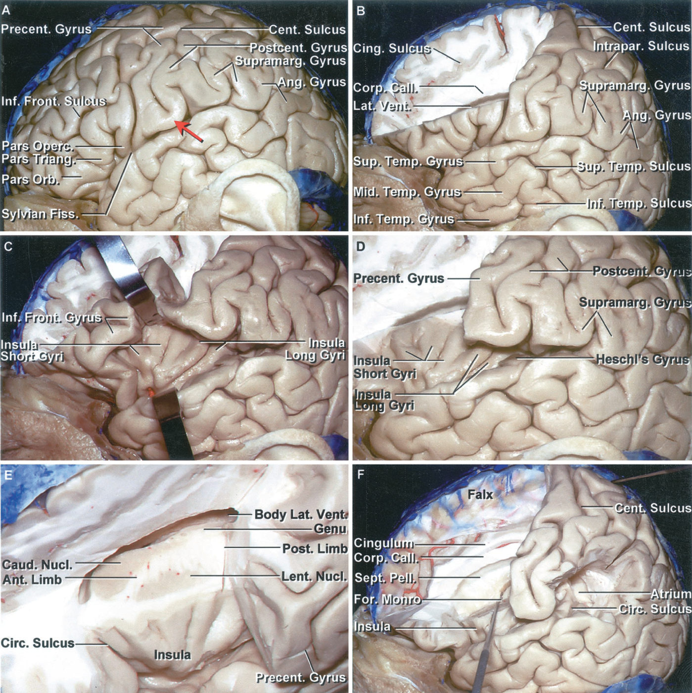 Figure 1.2 A-F. Stepwise dissection of the left cerebral hemisphere. A, the inferior frontal gyrus is composed of the pars orbitalis, pars opercularis, and parstriangularis. The precentral gyrus borders the sylvian fissure behind the pars opercularis. The sylvian fissure extends backward and turns up into the supramarginal gyrus at its posterior end. The lower part of the postcentral gyrus is positioned in front of the anterior bank of the supramarginal gyrus. The posterior bank of the supramarginal gyrus is continuous with the superior temporal gyrus. The central sulcus ascends between the pre-and postcentral gyri. There is commonly a gyral bridge (red arrow) connecting the pre- and postcentral gyri below the lower end of the central sulcus, so that the central sulcus does not open directly into the sylvian fissure. Often, with the limited craniotomy opening, the whole sylvian fissure is not exposed to aid in identification of the pre- and postcentral gyri and the central sulcus. The position of the lower end of the pre- and postcentral gyri can be approximated by identifying the pars opercularis just in front of the precentral gyrus and the anterior bank of the supramarginal gyrus just in back of the postcentral sulcus. The angular gyrus wraps around the upturned posterior end of the superior temporal sulcus. B, the part of the frontal lobe above the inferior frontal gyrus and in front of the precentral sulcus has been removed while preserving a thin layer of the medial part of the hemisphere. The inferior frontal sulcus is located on the convexity at the deep level of the lower margin of the corpus callosum and roof of the frontal horn. The gray matter of the cingulate sulcus is exposed above the corpus callosum. C, the opercular lips have been retracted to expose the insula, which is defined at its outer margin by the circular or limiting sulcus. The short gyri are located anteriorly and the long gyri posteriorly. D, enlarged view with the brain in front of the precentral gyrus removed. The insular gyri radiate upward and backward from the anteroinferior angle situated just lateral to the limen insulae. The short gyri are located deep to the pars triangularis and opercularis. Heschl's gyrus, the most anterior of the transverse temporal gyri, faces the lower end of the postcentral gyrus across the sylvian fissure. E, anterosuperior view of the central core of the hemisphere located deep to the insulae. The lentiform nucleus is exposed deep to the insula and is separated from the caudate nucleus by the anterior limb of the internal capsule. The circular sulcus surrounds the insula. F, the supramarginal gyrus has been removed to show its location superficial to the atrium. The posterior margins of the insula and circular sulcus are positioned superficial to the anterior edge of the atrium. The pre- and postcentral gyri are located lateral to the body of the ventricle and the splenium of the corpus callosum. The foramen of Monro is located deep to a point on the pars opercularis approximately 1 cm above the sylvian fissure and deep to the midlevel of the short gyri of the insula.