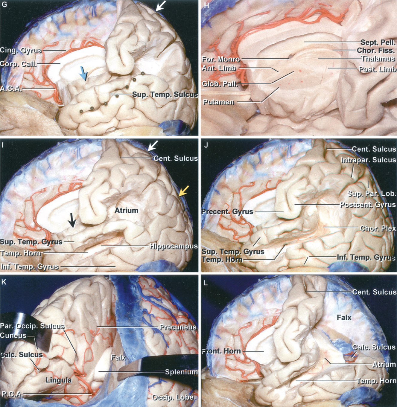 Figure 1.2 G-L. G, colored pins have been placed along a line that corresponds to the lower margin of the insula, which is located deep to the superior temporal sulcus. A blue arrow has been placed on the foramen of Monro, which is located deep to the central part of the insula. The white arrow is located at the site where the upper end of the ascending ramus of the cingulate sulcus reaches the superior hemispheric border. The ascending ramus courses on the medial surface along the posterior margin of the paracentral lobule. H, the anterior limb of the internal capsule is located between the lentiform nucleus, formed by the putamen and globus pallidus, and the caudate nucleus. The posterior limb is located between the thalamus and lentiform nucleus. The genu of the internal capsule is located just lateral to the foramen of Monro. The choroidal fissure, along which the choroid plexus is attached, is situated between the fornix and thalamus. I, the temporal horn and hippocampus are located medial to the middle temporal gyrus, a segment of which has been removed. The hippocampus sits in the floor of the temporal horn. The atrium is deep to the supramarginal gyrus. The black arrow is on the foramen of Monro. The white arrow is located where the upper end of the ascending ramus of the cingulate sulcus reaches the superior hemispheric border. The yellow arrow is where the upper end of the parieto-occipital sulcus reaches the superior border. J, the remaining bridge of the superior temporal gyrus located superficial to the junction of the atrium and temporal horn has been removed. K, posterior view of the left hemisphere. The splenium is located deep in the interhemispheric fissure. The parieto-occipital and calcarine sulcus converge behind the splenium to give the medial surface a Y shaped configuration. The parieto-occipital sulcus separates the precuneus and cuneus, and the calcarine sulcus separates the cuneus and lingula. L, the parietal lobe, above the level of the calcarine sulcus, has been removed. The upper lip of the calcarine sulcus, formed by the cuneus, has been removed to expose the lingula that forms the lower bank of the calcarine sulcus. The calcar avis is a prominence in the lower part of the medial atrial wall overlying the calcarine sulcus.