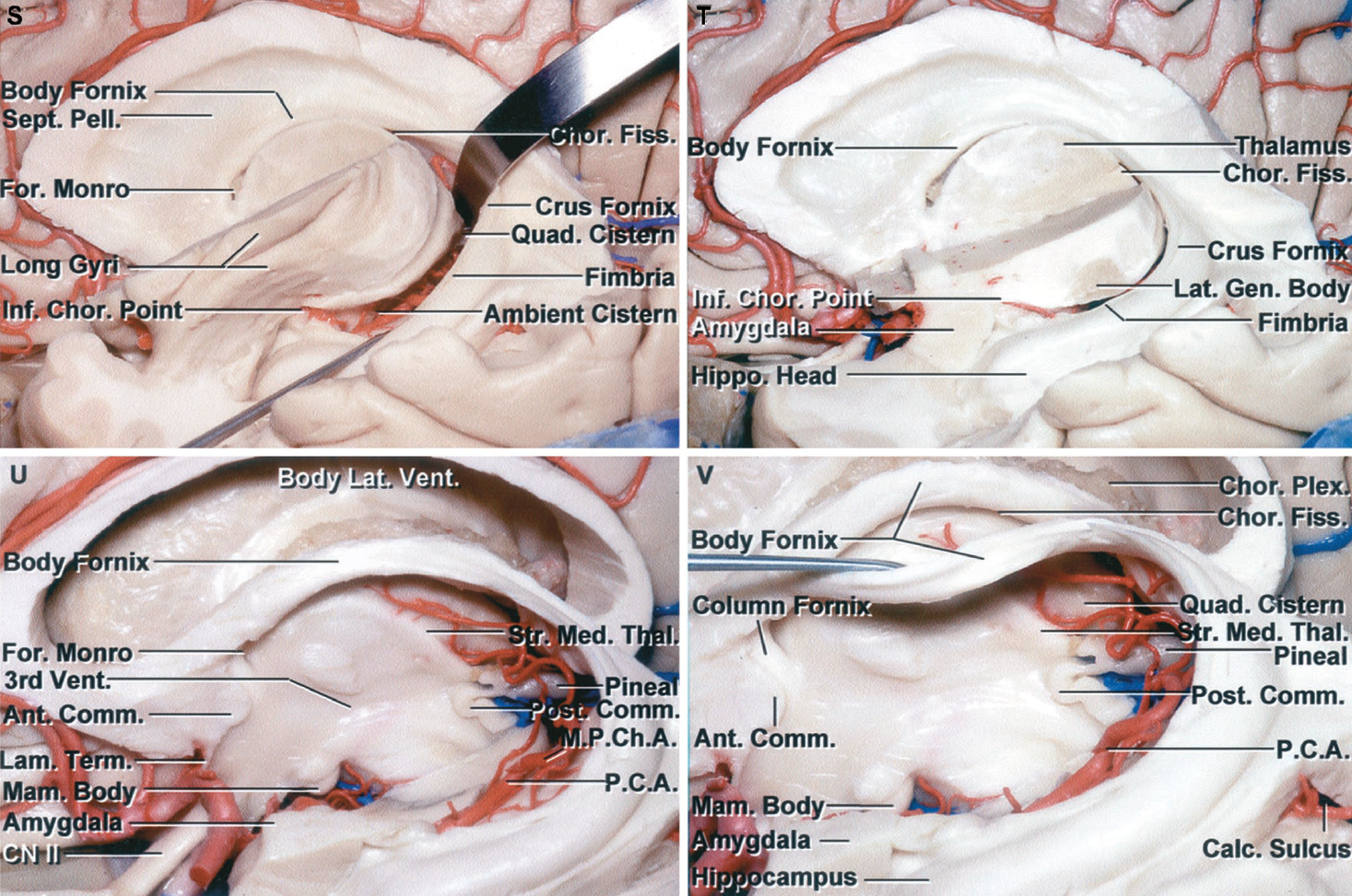 Figure 1.2 S-V. S, a retractor has been placed between the thalamus and the crus of the fornix to open the choroidal fissure. Opening the choroidal fissure in the body of the ventricle exposes the third ventricle. Opening the choroidal fissure between the pulvinar and crus of the fornix exposes the quadrigeminal cistern, and opening the fissure between the lower surface of the thalamus and the fimbria of the fornix exposes the ambient cistern. T, the remaining insula has been removed to expose the thalamus forming the inner rim of the choroidal fissure. The lateral geniculate body is exposed at the lower margin of the thalamus. The optic radiations pass laterally above the hippocampus in the roof of the temporal horn and posteriorly around the lateral margin at the atrium to reach the calcarine sulcus. The anterior wall of the temporal horn is formed by the amygdala, which tilts backward above, but is separated from the hippocampal head by the temporal horn. U, the thalamus has been removed to expose the third ventricle. The body, crus, and fimbria of the fornix, forming the outer margin of the choroidal fissure, have been preserved. Opening the choroidal fissure in front of the crus of the fornix exposes the pineal region and quadrigeminal cistern. Opening the choroidal fissure adjacent to the body of the fornix exposes the third ventricle. Opening the choroidal fissure in the temporal horn exposes the ambient cistern and posterior cerebral arteries. The medial posterior choroidal arteries are exposed in the quadrigeminal cistern. The striae medullaris thalami marks the lower edge of the velum interpositum, in which the internal cerebral veins course. V, the left half of the body of the fornix has been folded downward to expose the right half of the body and medial aspect of the contralateral choroidal fissure located between the body of the fornix and the upper surface of the thalamus. The pineal gland and posterior commissure are exposed at the posterior margin and the anterior commissure and columns of the fornix are exposed at the anterior margin of the third ventricle. A., artery; A.C.A., anterior cerebral artery; Ang., angular; Ant., anterior; Asc., ascending; Calc., calcar, calcarine; Call., callosum; Caud., caudate; Cent., central; Chor., choroid, choroidal; Cing., cingulate; Circ., circular; CN, cranial nerve; Comm., commissure; Corp., corpus; Fiss., fissure; For., foramen; Front., frontal; Gen., geniculate; Glob., globus; Hippo., hippocampal; Inf., inferior; Intrapar., intraparietal; Lam., lamina; Lat., lateral; Lent., lenticular, lentiform; Lob., lobule; M.P.Ch.A., medial posterior choroidal artery; Mam., mamillary; Med., medullaris; Mid., middle; Nucl., nucleus; Occip., occipital; Operc., opercularis; Orb., orbitalis; P.C.A., posterior cerebral artery; Pall., pallidus; Par., parietal; Paracent., paracentral; Par. Occip., parieto-occipital; Pell., pellucidum; Plex., plexus; Post., posterior; Postcent., postcentral; Precent., precentral; Quad., quadrigeminal; Sept., septum; Str., striae; Sup., superior; Supramarg., supramarginal; Temp., temporal; Term., terminalis; Thal., thalamic, thalamus; Triang., triangularis; Vent., ventricle.