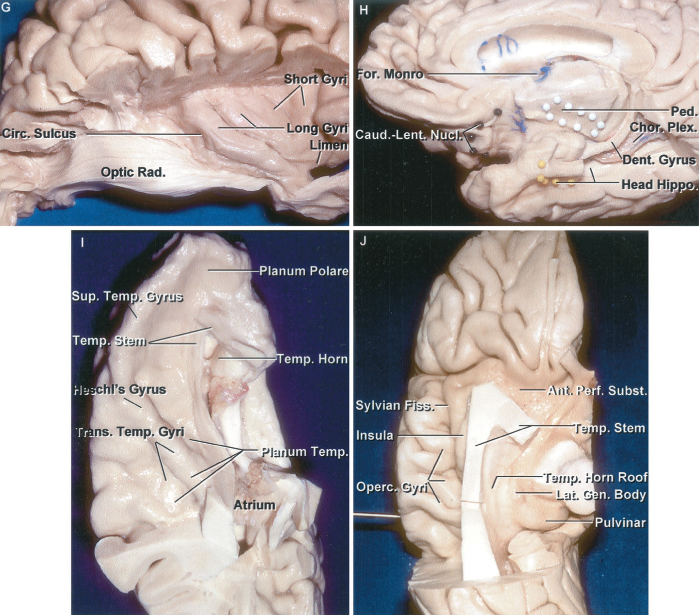 Figure 1.4 G-J. G, the temporal lobe has been removed and the optic radiations preserved. The lower margin of the insula is located superficially at approximately the deep level of the lateral geniculate body. The fibers of the optic radiation pass through the stem of the temporal lobe on their way back to the calcarine sulcus. H, inferomedial view of the basal frontal and medial temporal lobes. The white dots outline the fibers descending to form the cerebral peduncle. Black pins outline the deep position of the caudate and lentiform nuclei above the anterior perforated substance and basal surface of the frontal lobe. The yellow pins outline the anterior margin of the head of the hippocampus. The posterior part of the head of the hippocampus has been exposed by removing the medial part of the parahippocampal gyrus. I, superior view of the upper surface of the temporal lobe that forms the floor of the sylvian fissure. The transverse temporal gyri, the most anterior of which is Heschl's auditory projection area, form the posterior part of the upper surface of the temporal lobe, called the planum temporale. The anterior part of the upper surface, called the planum polare, is free of gyri and has a shallow trough to accommodate the course of the middle cerebral artery. The lateral edge of the planum polare is formed by the superior temporal gyrus. The stem of the temporal lobe, the relatively thin layer of white and gray matter that connects the temporal lobe to the lower insula, is positioned above the lateral and anterior edge of the temporal horn. J, inferior view of the frontoparietal operculum. The gyri on the lateral surface extend around the lower border of the frontal and parietal lobes to form the upper lip of the sylvian fissure. The optic radiations pass laterally from the lateral geniculate body and course in the roof of the temporal horn along the temporal stem and lateral to the atrium to reach the calcarine sulcus on the medial aspect of the occipital lobe. Ant., anterior; Caud., caudate; Cent., central; Chor., choroid, choroidal; Circ., circular; CN, cranial nerve; Dent., dentate; Fiss., fissure; For., foramen; Front., frontal; Gen., geniculate; Hippo., hippocampus; Lat., lateral; Lent., lentiform, lenticular; Mam., mamillary; Med., medial; Nucl., nucleus; Olf., olfactory; Operc., operculum, opercularis; Orb., orbitalis; Parahippo., parahippocampal; Ped., peduncle; Perf., perforated; Pit., pituitary; Plex., plexus; Post., posterior; Precent., precentral; Rad., radiations; Seg., segment; Subst., substance; Sup., superior; Temp., temporal, temporale; Tr., tract; Trans., transverse; Triang., triangularis; Vent., ventricle.