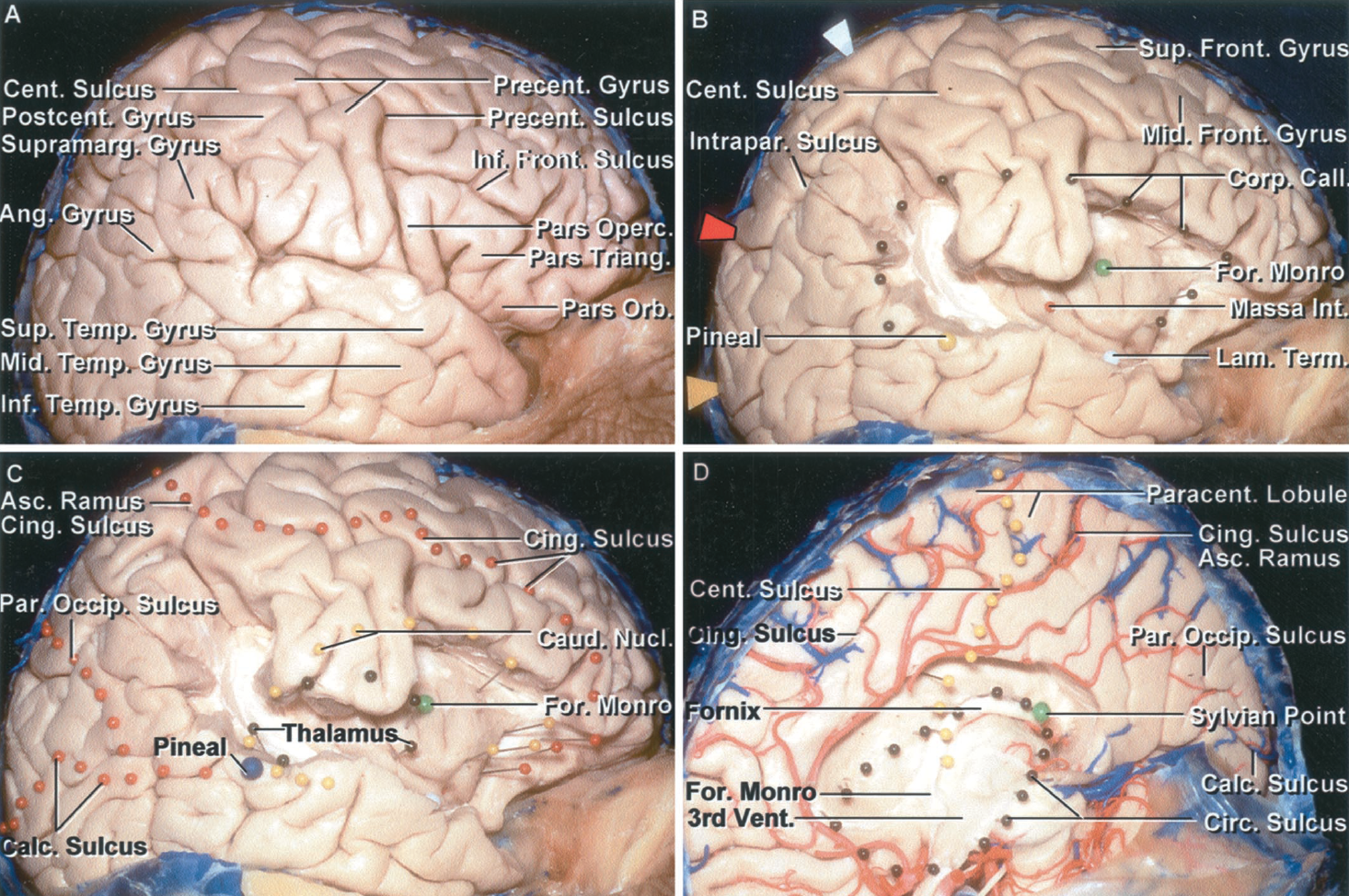 Figure 1.5. Relationships between the medial and lateral surface. A, lateral view, right cerebrum. The inferior frontal gyrus is formed by the pars orbitalis, triangularis, and opercularis. The pre- and postcentral gyri are located between the pars opercularis anteriorly and supramarginal gyrus posteriorly. The precentral gyrus is broken into two gyral strips. B, the pars opercularis, triangularis, and orbitalis, and the superior temporal gyrus and part of the supramarginal gyrus have been removed to expose the insula. A number of pins have been placed on the cortical surface to identify the deep location of various structures: the green pin indicates the foramen of Monro; the red pin, the massa intermedia; yellow pin, the pineal gland; white pin, the lamina terminalis. The ovoid group of dark pins identifies the outer margin of the corpus callosum. The arrows along the posterior half of the superior margin identify the site at which sulci on the medial surface intersect the superior margin as follows: white arrow, the ascending (marginal) ramus of cingulate sulcus that marks the posterior edge of the paracentral lobule; red arrow, the parieto-occipital sulcus; and yellow arrow, the calcarine sulcus. C, red pins have been placed on the convexity directly lateral to the course of the calcarine and parieto occipital sulci and the cingulate sulcus and its ascending ramus on the medial surface. The ascending ramus of the cingulate sulcus extends along the posterior edge of the paracentral lobule formed by the upper end of the pre- and postcentral gyrus overlapping onto the medial surface of the hemisphere. The parieto-occipital and calcarine sulci on the medial surface converge and join in a Y-shaped configuration. Small black pins outline the thalamus. The yellow pins outline the outer margin of the caudate nucleus. The large blue pinhead is located at the level of the pineal, and the green pin is located directly lateral to the foramen of Monro. D, medial surface of the same hemisphere. The yellow pins mark the location of the central sulcus. The lower end of the central sulcus is located just behind the foramen of Monro as is also shown in B and C. The dark pins outline the circular sulcus of the insula. The green pin is positioned at the sylvian point where the last branch of the middle cerebral artery turns laterally from the surface of the insula to reach the cortical surface. Ang., angular; Asc., ascending; Calc., calcarine; Call., callosum; Caud., caudate; Cent., central; Cing., cingulate; Circ., circular; Corp., corpus; For., foramen; Front., frontal; Inf., inferior; Int., intermedia; Intrapar., intraparietal; Lam., lamina; Mid., middle; Nucl., nucleus; Operc., opercularis; Orb., orbitalis; Par. Occip., parieto- occipital; Paracent., paracentral; Postcent., postcentral; Precent., precentral; Sup., superior; Supramarg., supramarginal; Temp., temporal; Term., terminalis; Triang., triangularis; Vent., ventricle.