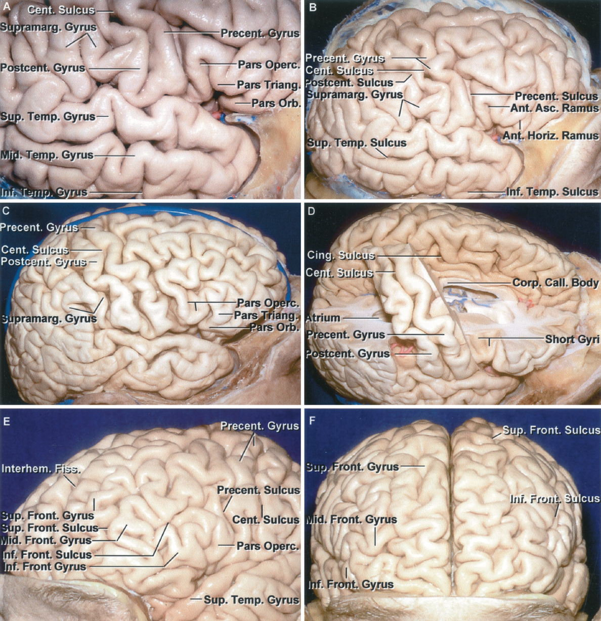 Figure 1.6 A-F. Identification of the pre- and postcentral gyri and variations in the frontal and temporal lobe. A, right frontotemporal area adjoining the sylvian fissure. This is the area that would be exposed in a sizable frontotemporal craniotomy. The limited exposure may make it difficult to determine the site of the central sulcus and the precentral and postcentral gyri. Usually, the pre- and postcentral gyri can be located by examining the gyral pattern along the upper lip of the sylvian fissure. From anteriorly, the pars orbitalis, triangularis, and opercularis can be identified. The precentral gyrus is usually located at the posterior margin of the pars opercularis. The sylvian fissure also can be followed backward to its upturned posterior end that is capped by the supramarginal gyrus. Usually, the postcentral gyrus is the next gyrus along the sylvian fissure anterior to the supramarginal gyrus. B, overview of the right hemisphere shown in A. The central sulcus can be followed to the superior margin of the hemisphere. The precentral gyrus is broken up into several segments by crossing sulci. The relationships of the pars opercularis to the precentral gyrus and the supramarginal gyrus to the postcentral gyrus are quite consistent and are helpful in identifying the central sulcus and the pre- and postcentral gyri during the limited operative exposures along the sylvian fissure. The anterior horizontal ramus of the sylvian fissure separates the pars orbitalis and triangularis and the anterior ascending ramus separates the pars triangularis and opercularis. C, another right hemisphere. The lower end of the precentral gyrus is located behind a somewhat lobulated pars opercularis. The postcentral gyrus is located at the anterior edge of the supramar ginal gyrus, which wraps around the upturned posterior end of the sylvian fissure. D, the part of the right frontal and parietal lobes in front of and behind the pre- and postcentral gyri and central sulcus has been removed. The precentral gyrus is located lateral to the posterior part of the body of the ventricle. The postcentral gyrus is located lateral to the anterior part of the atrium. Both gyri adjoining the sylvian fissure are positioned lateral to the splenium of the corpus callosum. E–G, sulci and gyri of the frontal lobe. E, superolateral view of the left frontal lobe. The frontal lobe is often depicted as being split into three gyri, superior, middle, and inferior, by two sulci, superior and inferior. Often, as shown, the superior frontal gyrus is split into medial and lateral segments by irregular sulci and gyri. The middle frontal gyrus does not have a smooth, unbroken surface, but is broken up into multiple, tortuous segments. On the inferior frontal gyrus, formed by the pars orbitalis, triangularis, and opercularis, there can be multiple variations in the size and shape of the contributions from each part. The precentral gyrus, in this case, is broken up into several segments by limbs of the precentral sulcus. F, anterior view. A portion of the right superior frontal gyrus is broken into two longitudinal gyral strips. The left superior frontal gyrus is composed of multiple gyri that extend medially and laterally across the superior frontal area. The superior frontal sulci are continuous along both frontal lobes. The middle frontal gyri on both hemispheres are made up of numerous worm-like gyral segments.