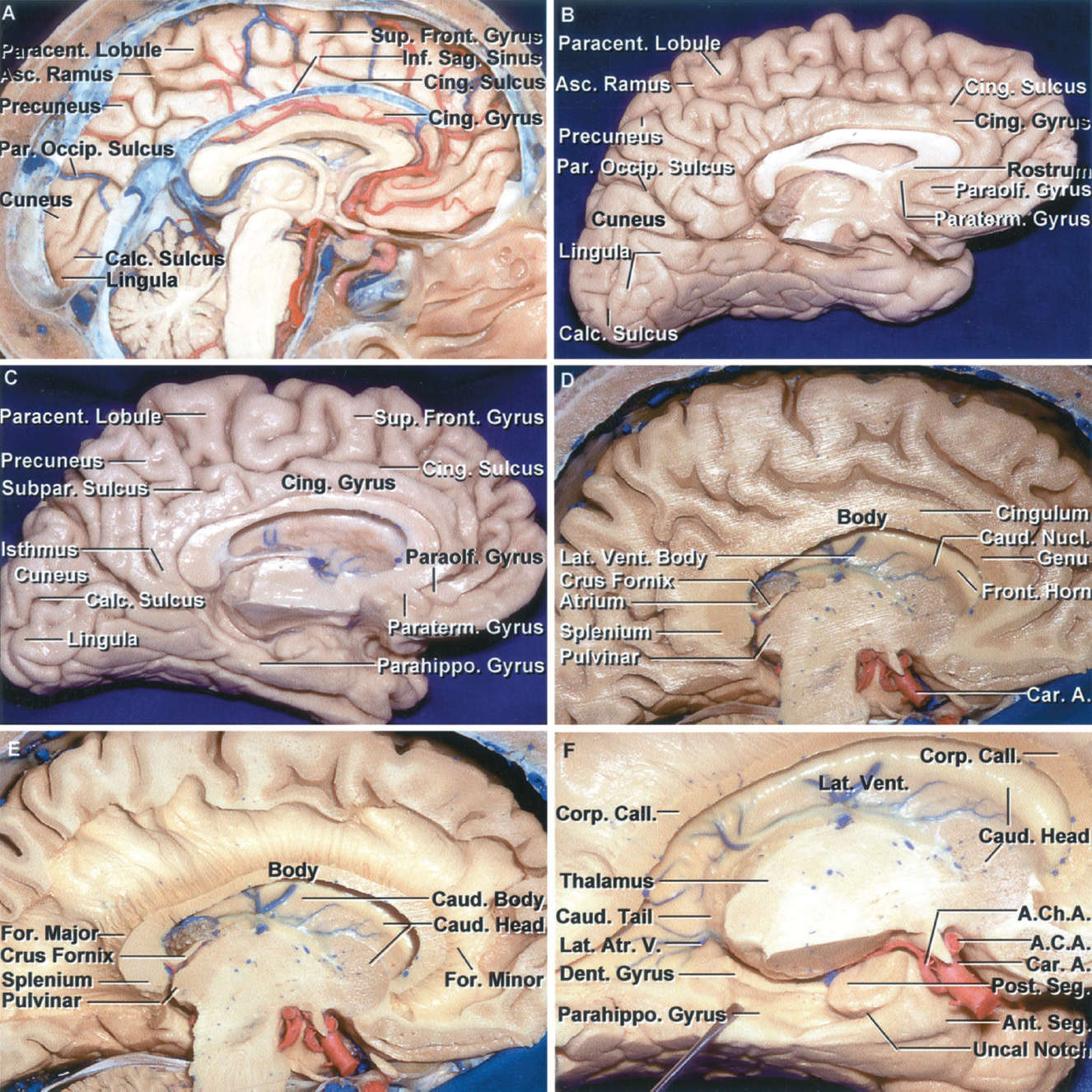 Figure 1.7 A-F. A–C, medial surface of the right cerebral hemisphere. A, the falx, except for the inferior sagittal sinus, has been removed. The majority of the medial surface of the frontal lobe is formed by the cingulate and superior frontal gyri that are separated by the cingulate sulcus. The ascending ramus of the cingulate sulcus passes behind the paracentral lobule, the site of the extension of the pre- and postcentral gyri onto the medial surface of the hemisphere. The medial surface behind the paracentral lobule is formed by the precuneus, cuneus, and lingula and the posterior part of the cingulate sulcus. The precuneus is located between the paracentral lobule and parieto-occipital sulcus. The cuneus is located between the parieto-occipital and the calcarine sulci. The lingual gyrus (lingula) is located below the calcarine sulcus. B, medial surface of another hemisphere. The paraterminal and paraolfactory gyri are located below the rostrum of the corpus callosum. The precuneus is located between the ascending ramus of the cingulate sulcus, the parieto-occipital sulcus, and the subparietal sulcus, a posterior extension of the cingulate sulcus. The cuneus is located between the parieto-occipital and calcarine sulci, and the lingula is located below the calcarine sulcus. The parieto-occipital and calcarine sulci join to create a Y-shaped configuration. The parahippocampal gyrus forms the majority of the medial surface of the temporal lobe. C, another hemisphere. The medial surface is formed by the paraterminal, paraolfactory, superior frontal, and cingulate gyri and the paracentral lobule, precuneus, cuneus, lingula, and parahippocampal gyrus. The cingulate sulcus narrows behind the splenium to form the isthmus of the cingulate sulcus that blends along the medial surface of the temporal lobe into the parahippocampal gyrus. D–K, fiber dissection of the medial surface of the hemisphere. D, the section extends through the medial part of the right hemisphere and thalamus. It crosses the medial part of the head of the caudate nucleus anteriorly and the pulvinar of the thalamus posteriorly. The genu of the corpus callosum wraps around the frontal horn. The body of the corpus callosum forms the roof of the body of the lateral ventricle and the splenium is located adjacent to the atrium. The caudate nucleus is exposed in the lateral wall of the frontal horn and the body of the ventricle. The cingulum, a bundle of association fibers, wraps around the outer border of the corpus callosum in the depths of the cingulate gyrus. E, the cingulum and gray matter of the cingulate gyrus have been removed to expose the fibers radiating laterally out of the corpus callosum. The cross section of the corpus callosum is the part nearest the reader and the fibers radiate away from the cut edge around the margins of the lateral ventricle. Fibers passing through the genu of the corpus callosum form the forceps minor and the anterior wall of the frontal horn and the large bundle passing posteriorly from the splenium forms the forceps major creating a prominence, the bulb of the corpus callosum, in the medial wall of the atrium. The crus of the fornix wraps around the pulvinar in the anterior wall of the atrium. F, the brainstem has been removed to expose the uncus, which has anterior and posterior segments. The anterior segment faces the internal carotid artery. The posterior segment, facing posteromedially, is divided into an upper and lower part by the uncal notch. Removing the brainstem also exposes the parahippocampal and dentate gyri. The crus of the fornix and splenium have been removed to expose the caudate tail extending around the pulvinar.