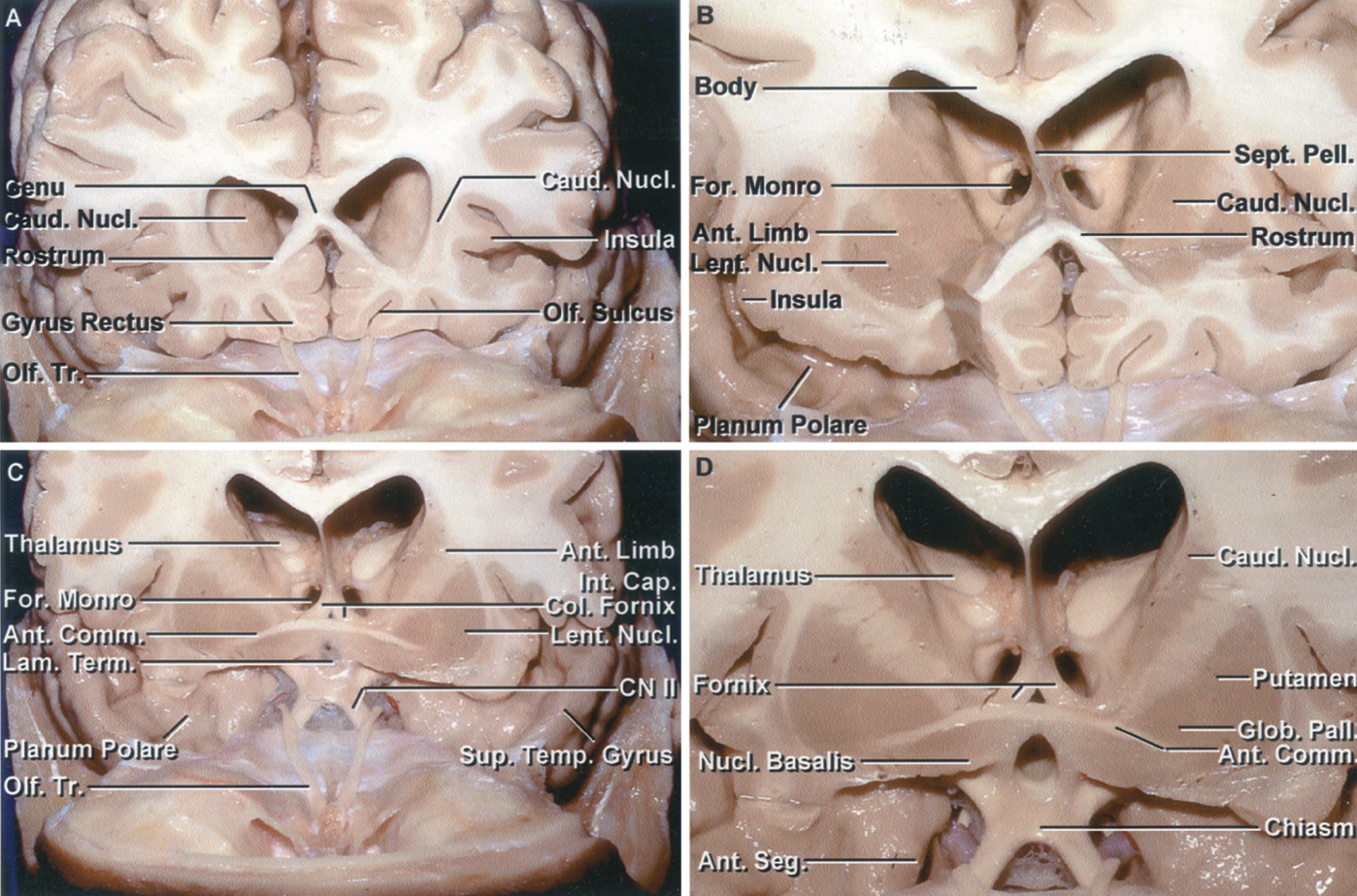 Figure 1.8 A-D. Stepwise dissection of the cerebral hemispheres, beginning anteriorly. A, coronal section at the level of the rostrum of the corpus callosum and anterior part of the frontal horn. The anterior wall and adjacent part of the roof of the frontal horn are formed by the genu of the corpus callosum, the floor by the rostrum, and the lateral wall by the caudate nucleus. The insular surface is small at this level. The gyrus rectus is located medial to the olfactory tracts. B, the section has been extended to the midportion of the frontal horn. The roof is formed by the body of the corpus callosum, the lateral wall by the caudate nucleus, the floor by the rostrum, and the medial wall by the septum pellucidum. The anterior limb of the internal capsule passes between the caudate and the lentiform nuclei. The caudate nucleus blends into the lentiform nucleus in the area below the anterior limb of the internal capsule. The planum polare on the upper surface of the anterior part of the temporal lobe is devoid of gyri and has a shallow trough along which the middle cerebral artery courses. C, the cross section has been extended posteriorly to the level of the lamina terminalis and the anterior commissure. The columns of the fornix pass around the anterior and superior margin of the foramen of Monro and turn downward behind the lamina terminalis toward the mamillary bodies. At this level, the lentiform nucleus has taken on its characteristic triangular or lens shape in cross section. D, enlarged view. The lamina terminalis has been opened. The anterior limb of the internal capsule separates the caudate and lentiform nuclei. The lentiform nucleus is formed by the putamen and globus pallidus. The anteroinferior part of the caudate and lentiform nuclei blends without clear demarcation into the large mass of gray matter above the anterior perforated substance and adjacent part of the orbital surface of the frontal lobe that also includes the nucleus basalis and accumbens. The nucleus basalis is located below the anterior commissure and the accumbens is located anterior to the basalis without clear demarcation between these two nuclei or the adjacent part of the lentiform and caudate nuclei. The anterior segment of the uncus is exposed lateral to the carotid artery.