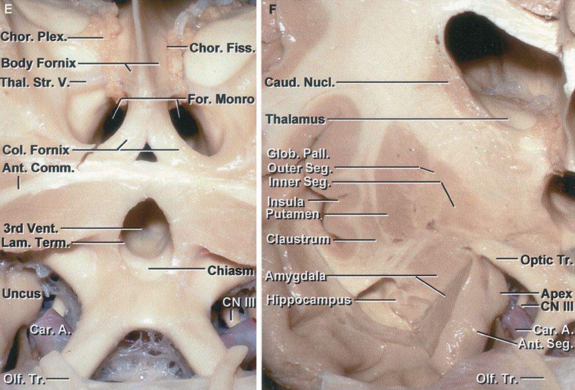 Figure 1.8 E-F. E, enlarged view. The olfactory nerves pass posteriorly above the optic nerves. The choroidal fissure, the cleft between the thalamus and body of the fornix along which the choroid plexus is attached, begins at the posterior edge of the foramen of Monro. The thalamostriate vein courses through the posterior margin of the foramen of Monro and between the thalamus and caudate nucleus. The oculomotor nerves are exposed behind the carotid arteries. F, the cross section has been extended backward to the level of the foramen of Monro. At this level the caudate nucleus is considerably smaller than anteriorly. The globus pallidus has a clearly defined inner and outer segment. The anterior part of the roof of the temporal horn has been removed to expose the amygdala and anterior part of the hippocampus. The amygdala, at its upper margin, blends into the globus pallidus. The combination of the globus pallidus and amygdala seem to wrap around the lateral aspect of the optic tract. The apex of the uncus protrudes medially toward the oculomotor nerve. The anterior uncal segment is located lateral to the carotid artery. The claustrum is located between the insula and the lentiform nucleus. The amygdala fills most of the anterior segment of the uncus and forms the anterior wall of the temporal horn. The amygdala tilts backward above the anterior part of the hippocampal head and roof of the temporal horn.